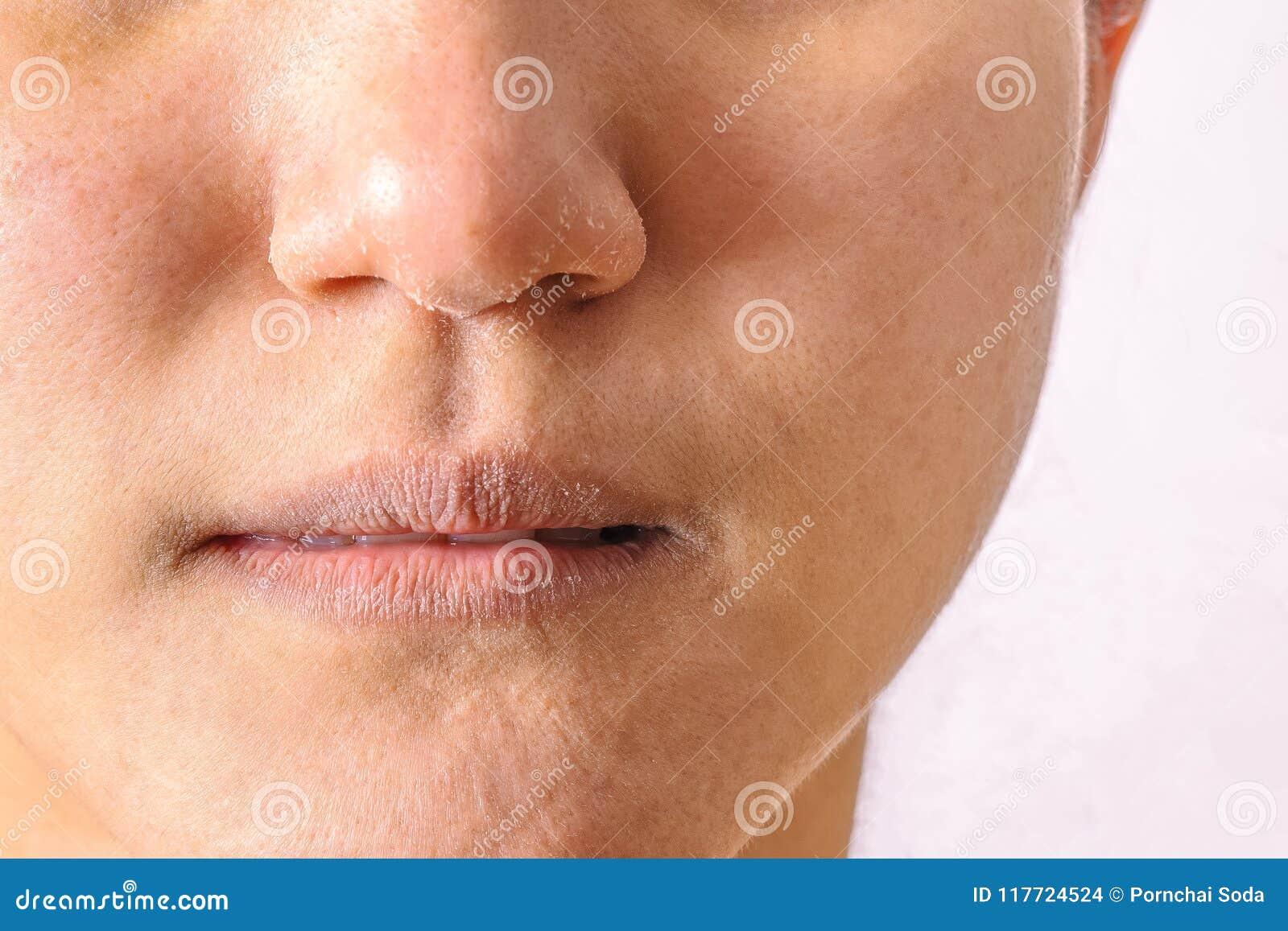 As mulheres alérgicas têm o nariz seco da eczema e os bordos no inverno temperam o close up