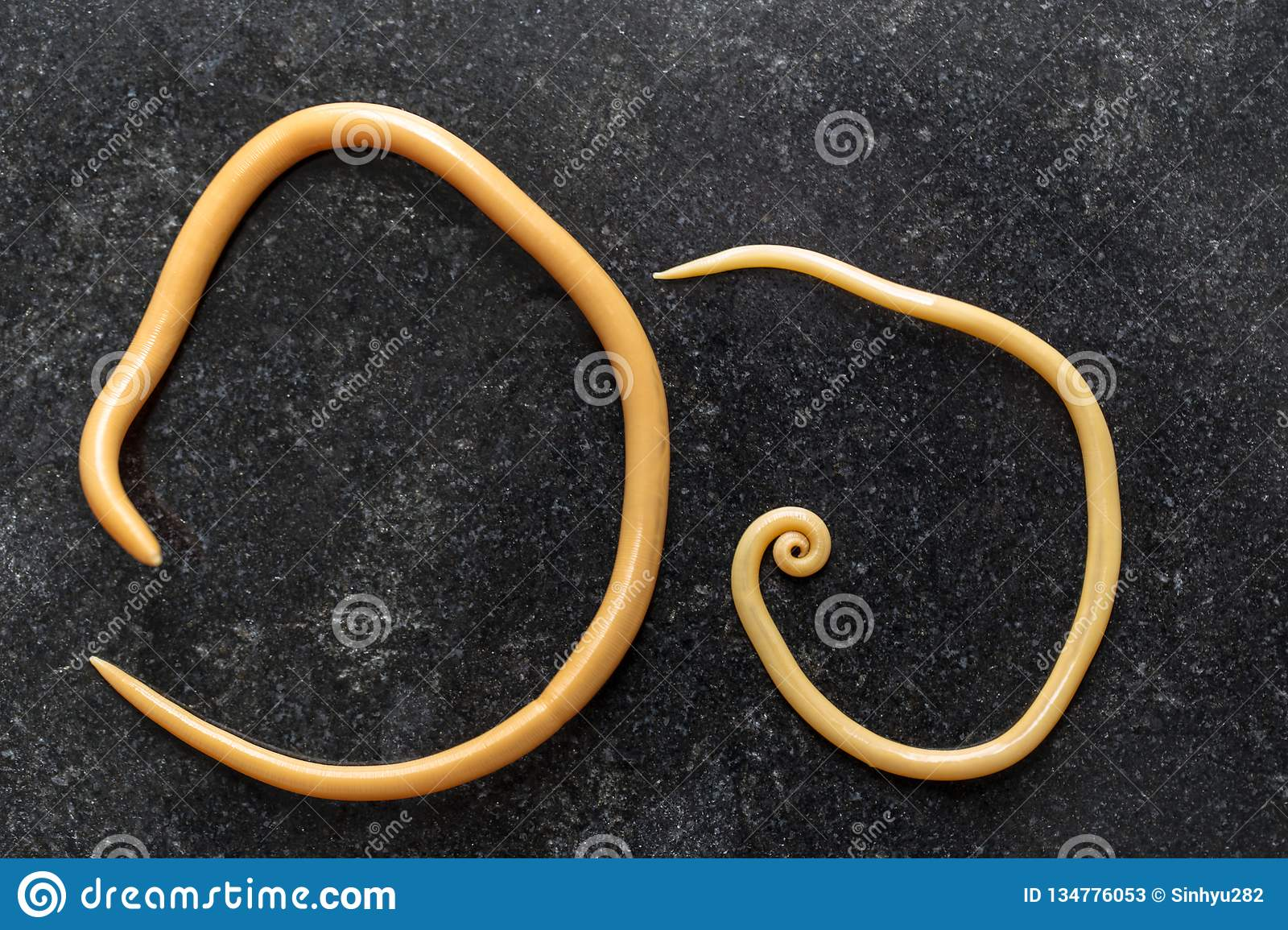 ascaris lumbricoides cause