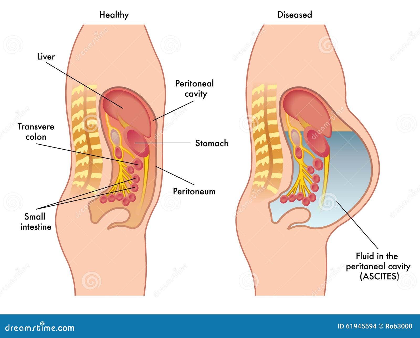 Stock Illustration Ascites Medical Illustration Symptoms Consequences Image61945594