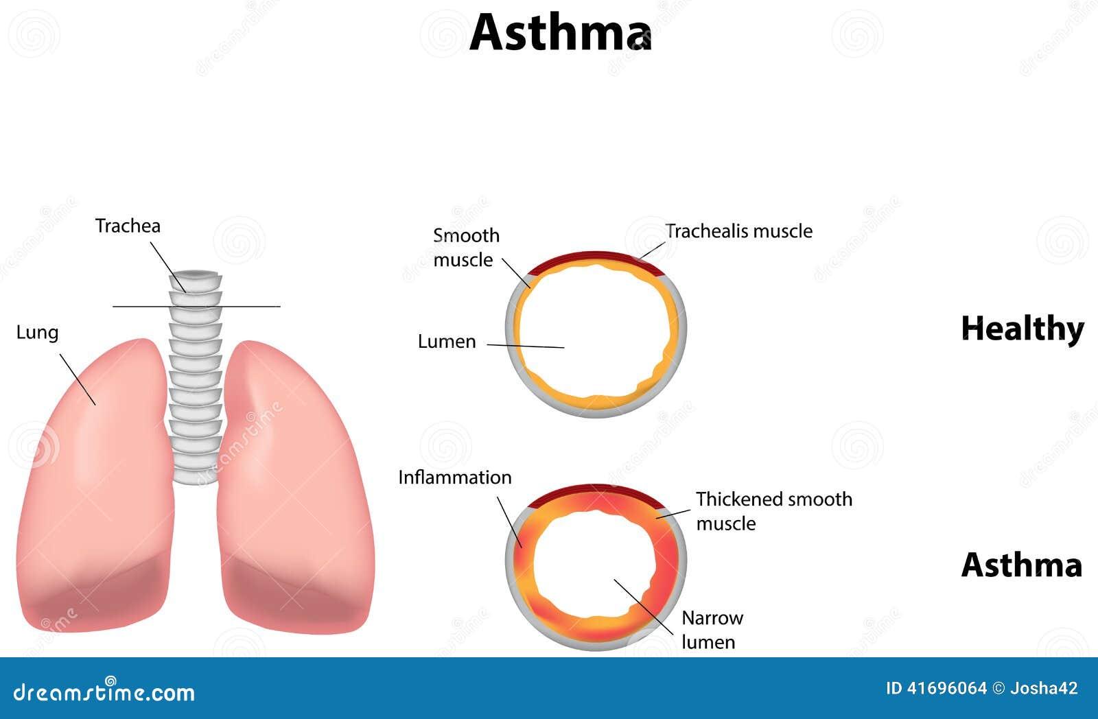 Asma ilustración del vector. Ilustración de inhalador - 41696064