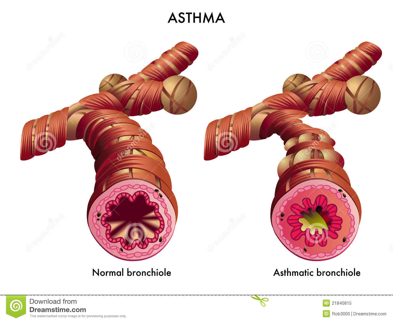 How Is the Respiratory System Affected by Asthma?
