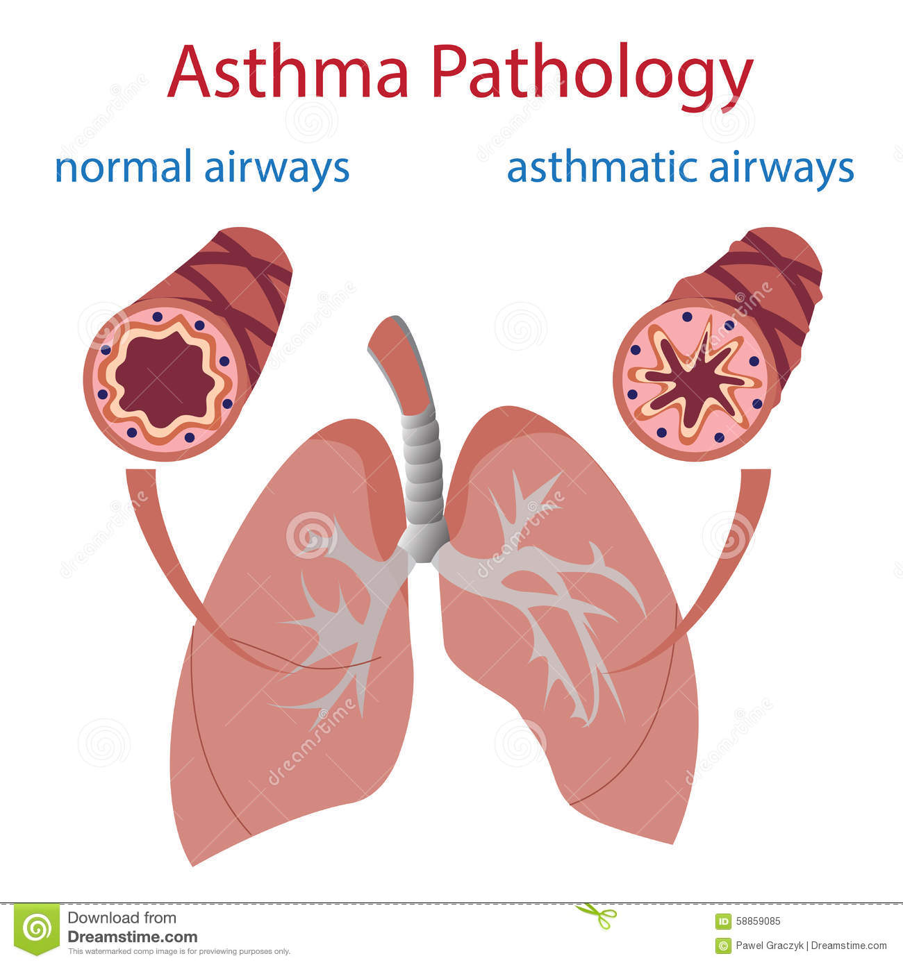 Normal Lungs Vs Asthma Lungs Pictures to Pin on Pinterest ...