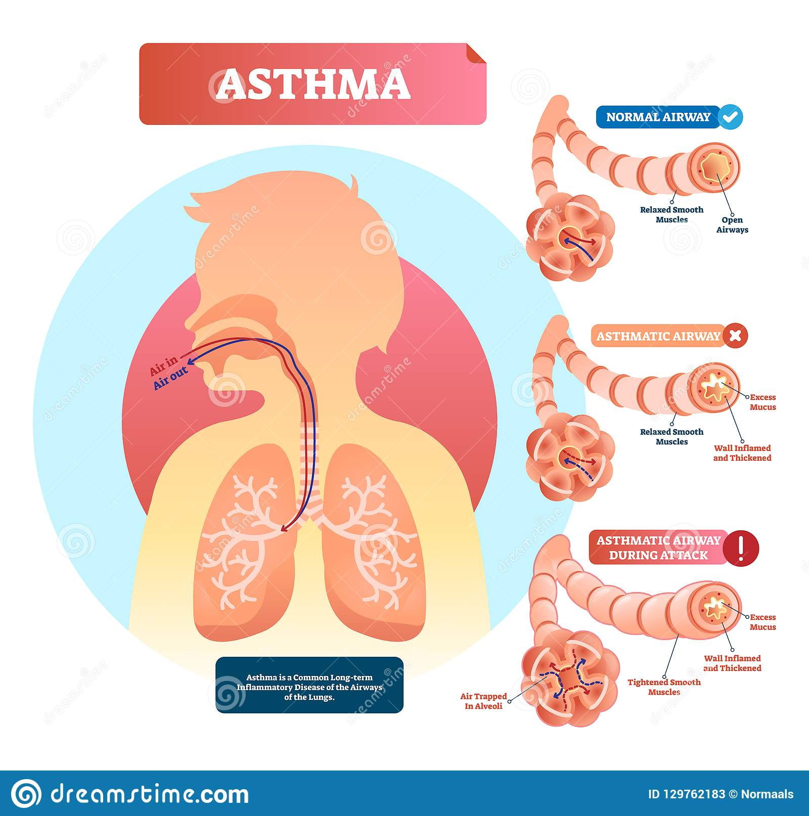 Asthma vector illustration. Disease with breathing problems diagram..