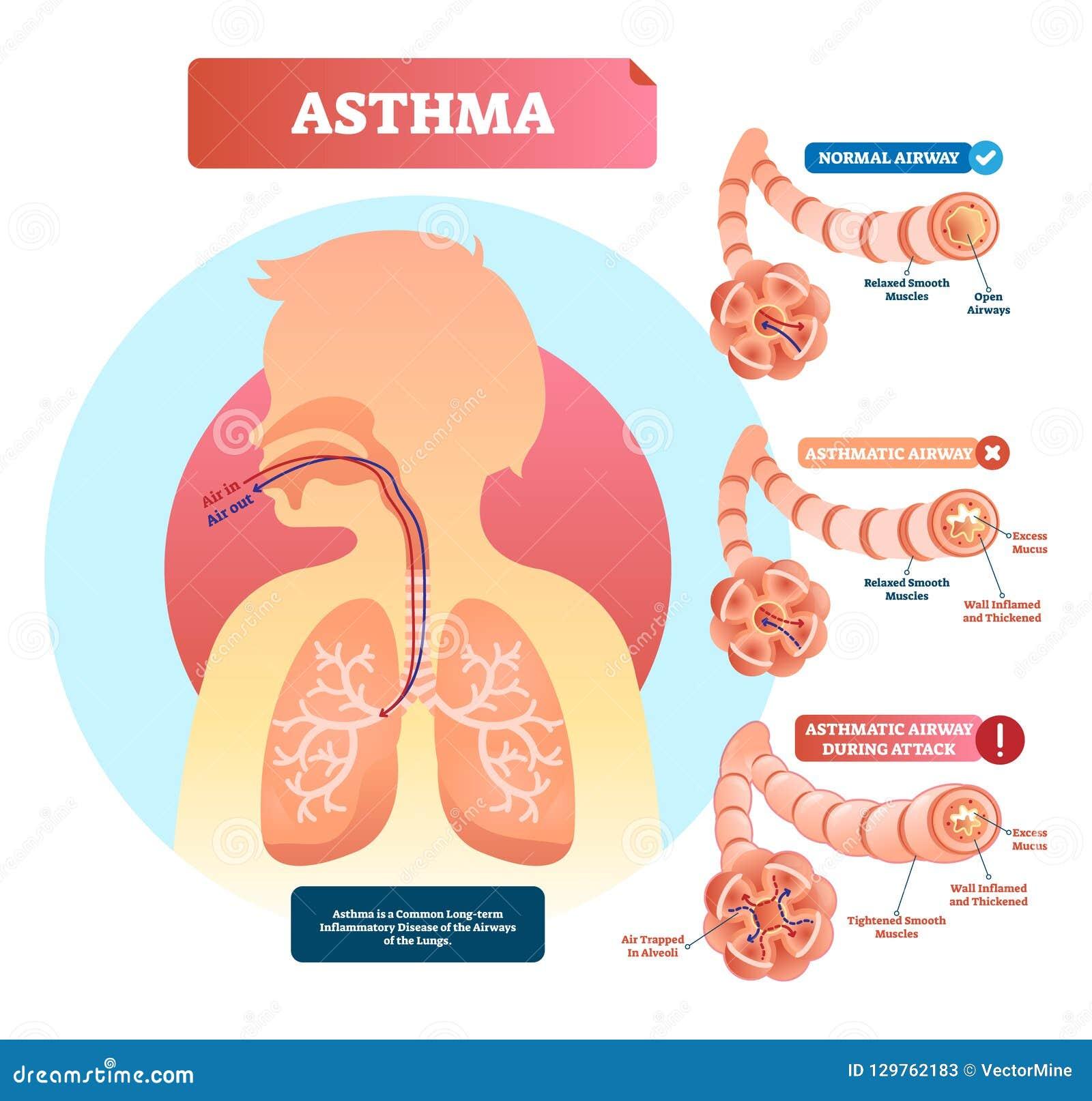 Astma wektoru ilustracja Choroba z oddychanie problemów diagramem