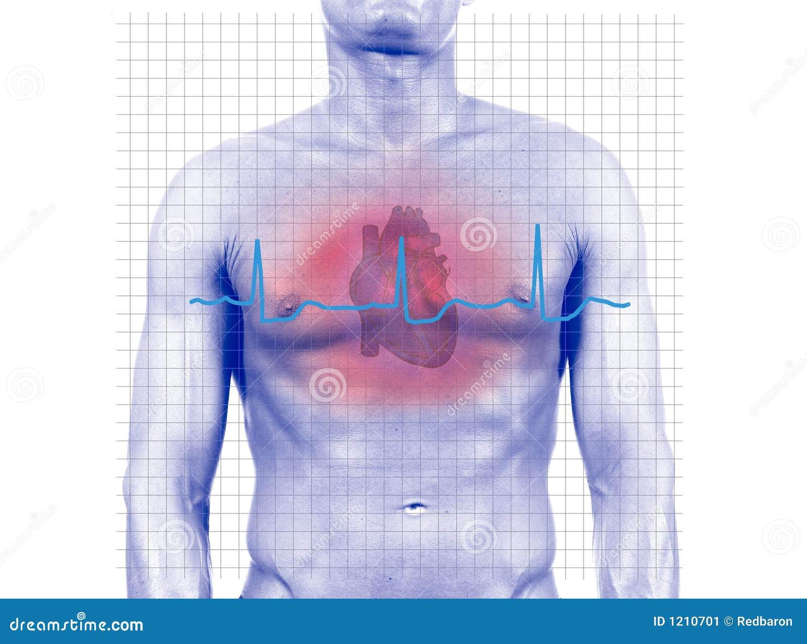 Ataque del corazón