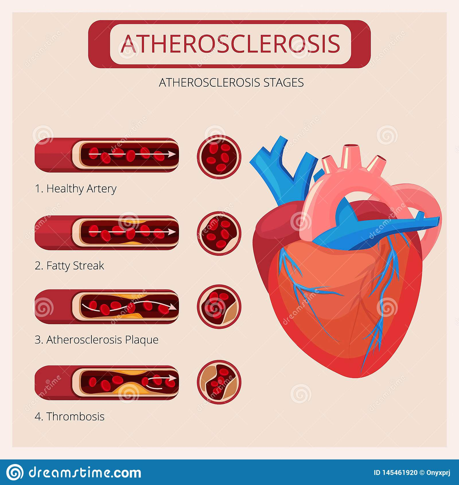 Atherosclerosis sceny Kierowego uderzenie skrzepliny ataka kr??eniowego systemu krwiono?ny wektorowy medyczny infographics
