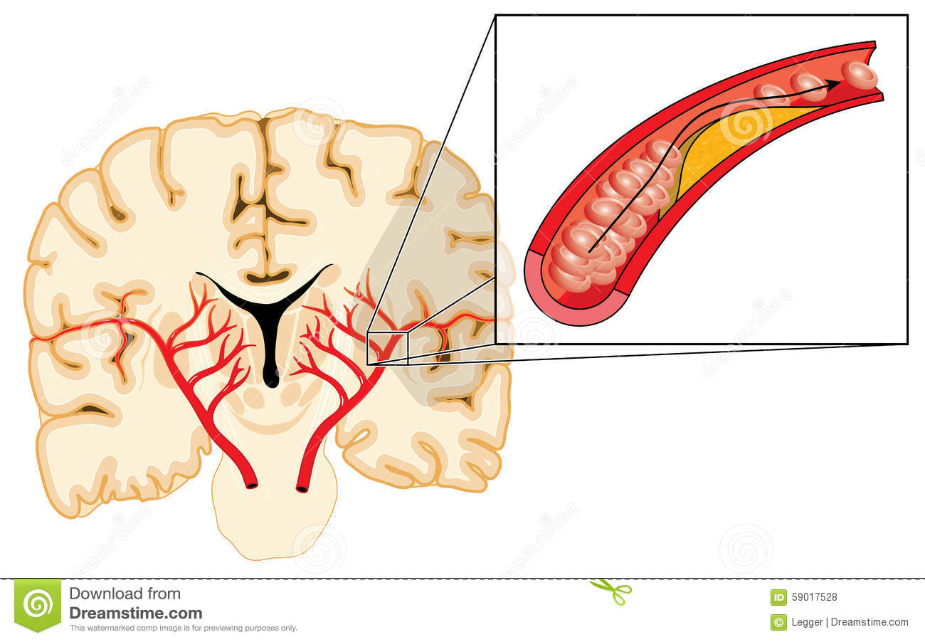Atherosclerosis And Stroke Stock Vector