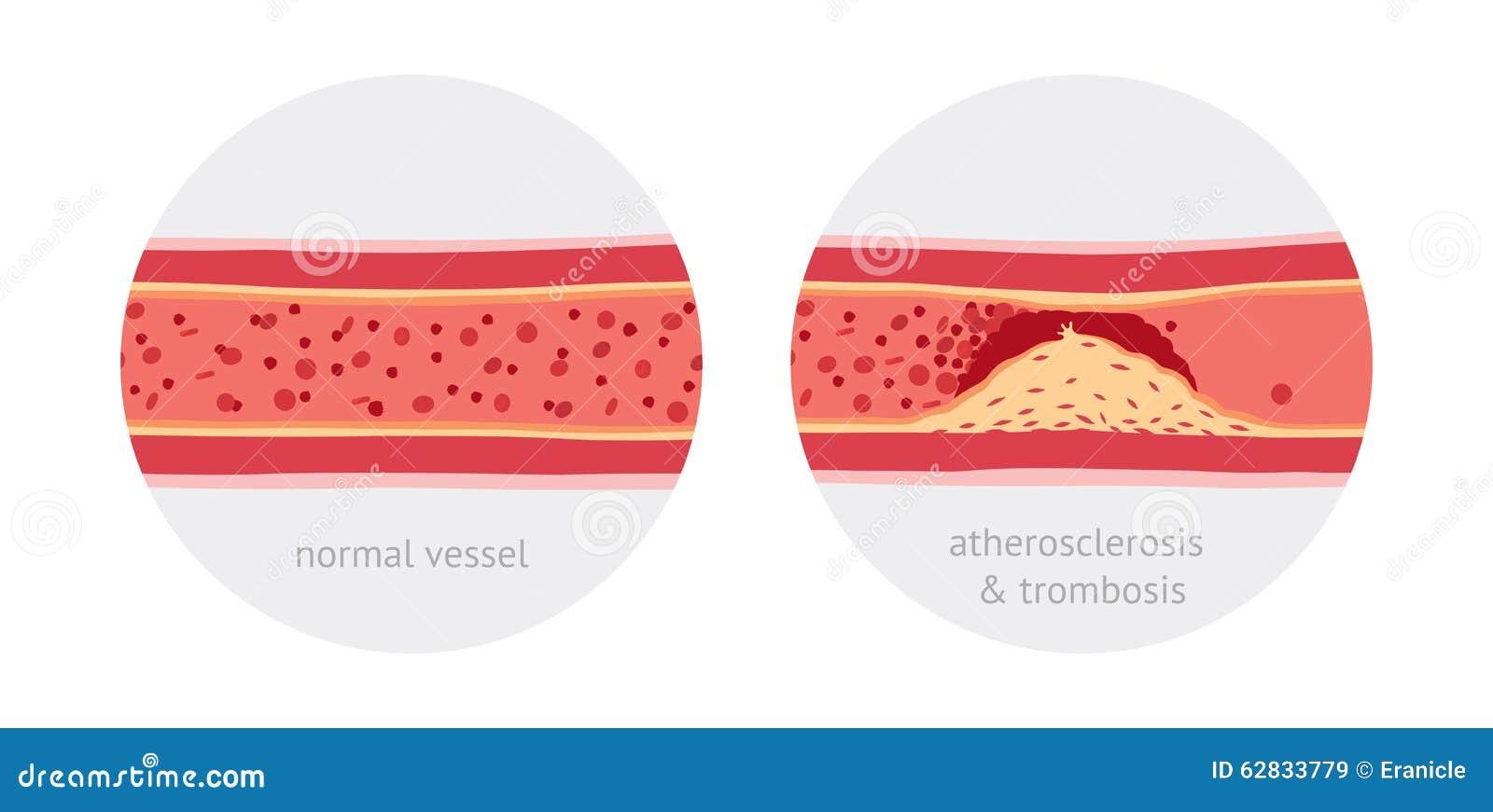 Atherotrombosis dans des navires