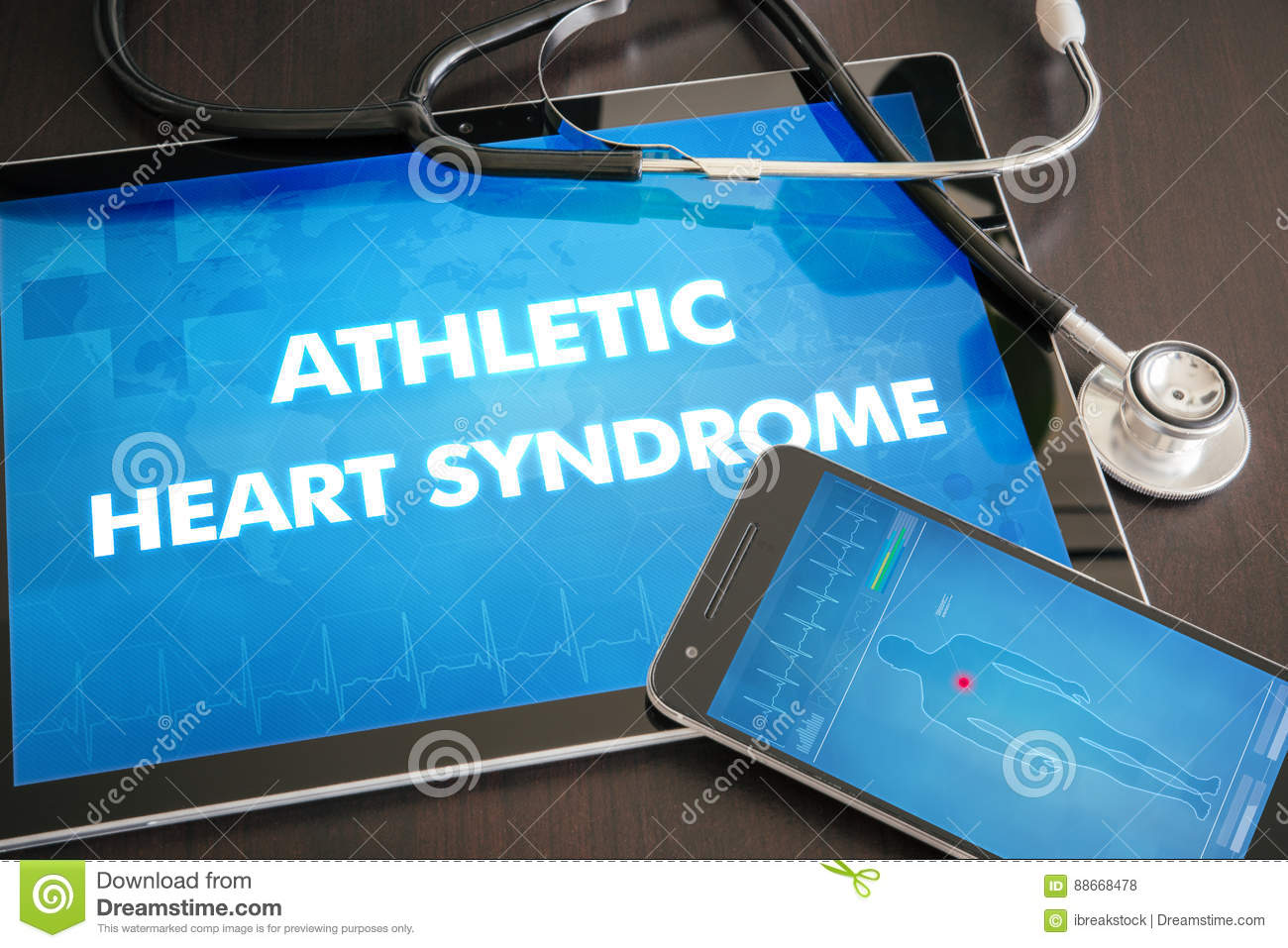 Athletic heart syndrome (heart disorder) diagnosis medical concept on tablet screen with stethoscope
