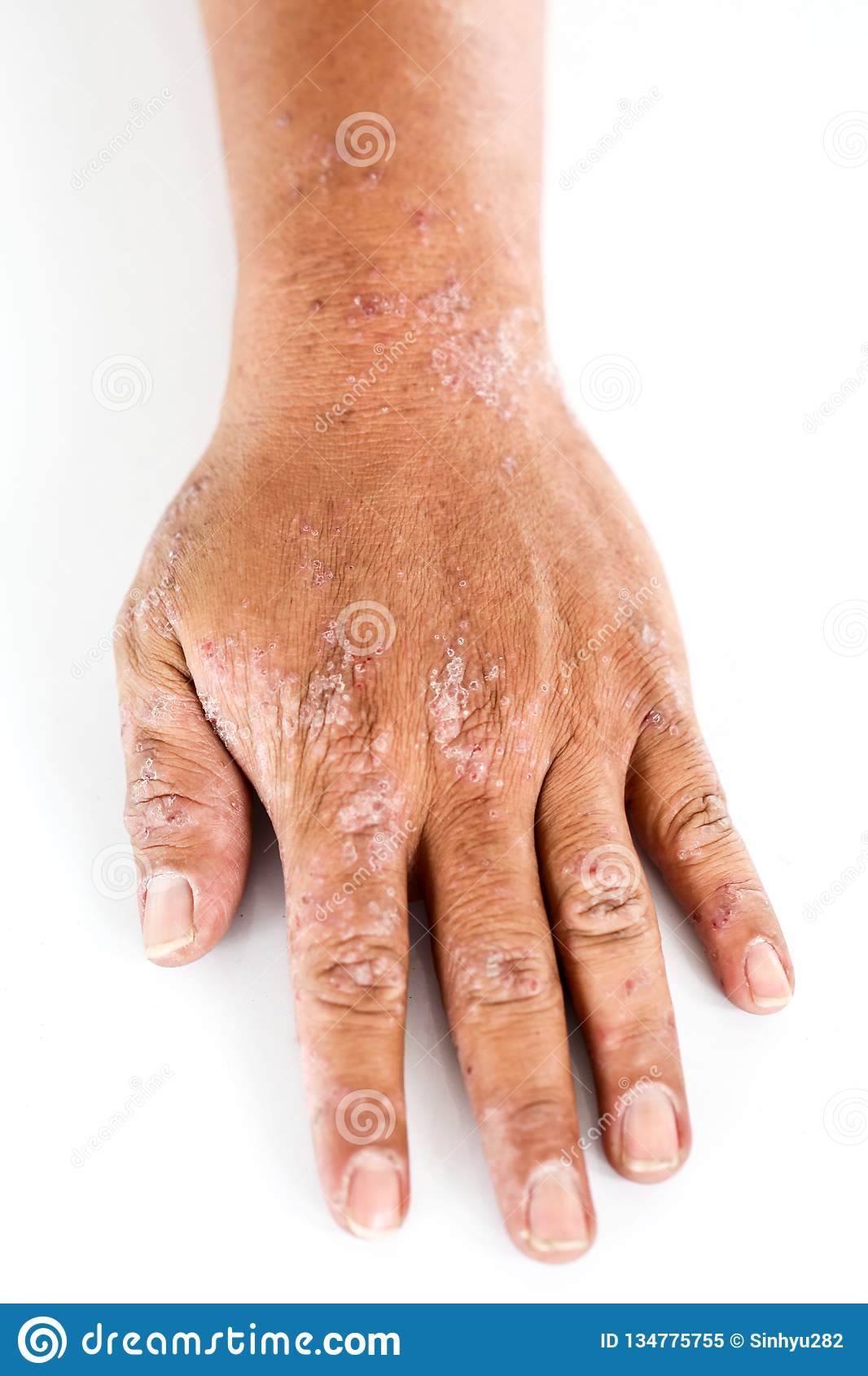 Atopic Dermatitis AD, Also Known As Atopic Eczema, Is A Type