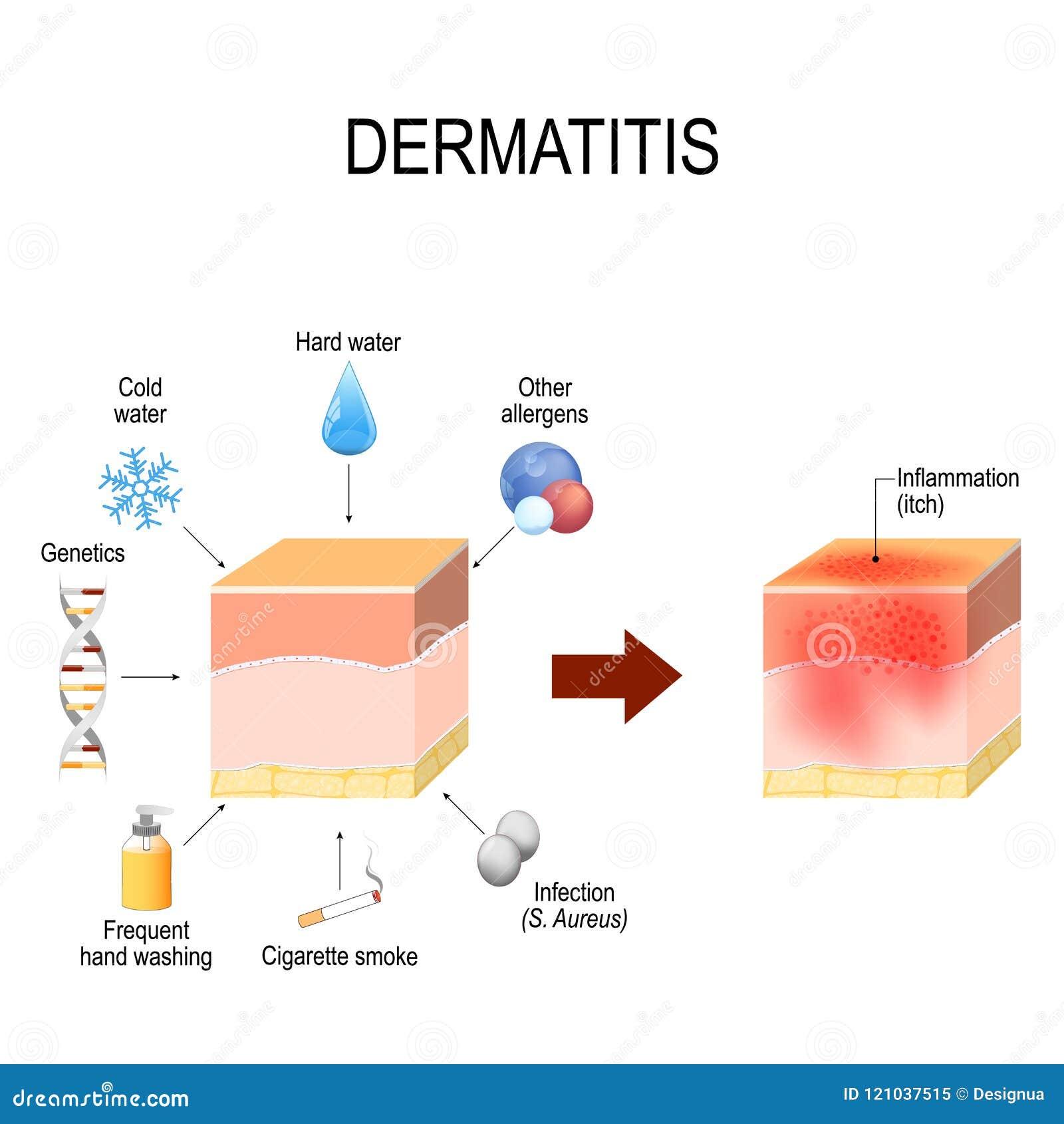 Atopic dermatitis atopic egzema wskazuje czynniki ten przyczyny chorobę C
