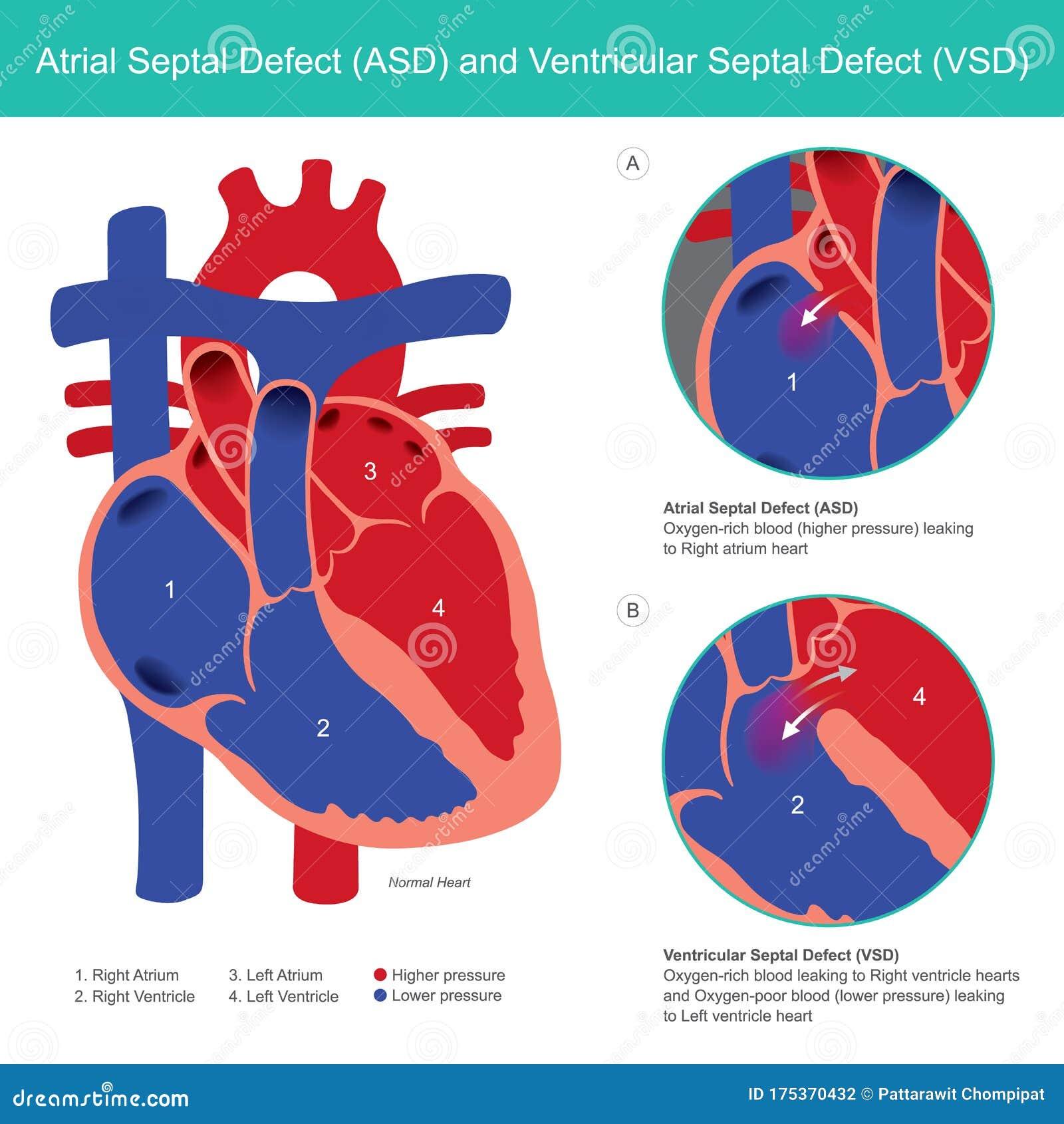 Atrial Septal Defect ASD And Ventricular Septal Defect VSD ...