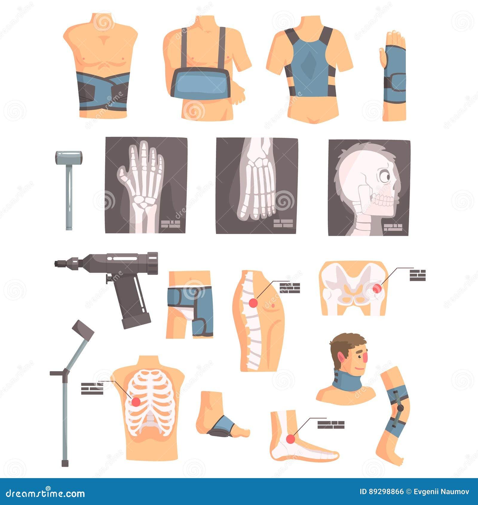 Atributos ortopédicos da cirurgia e da ortopedia e grupo de ferramentas de ícones dos desenhos animados com as ataduras, os raios