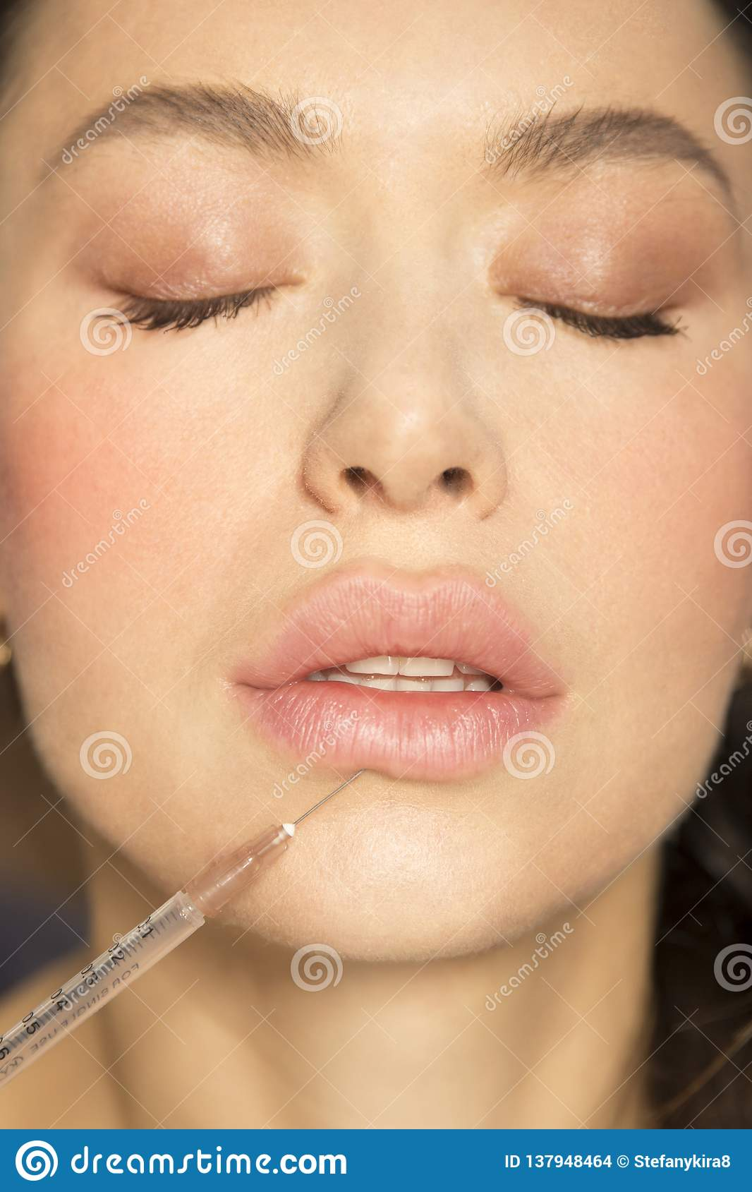 Attractive young girl Plump lips syringe Plastic surgery