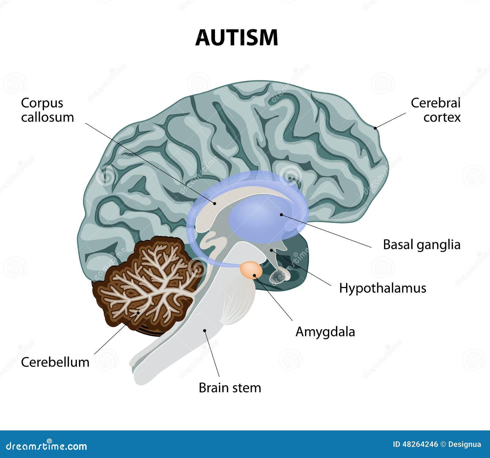 Autism Stock Vector  Image Of Anatomy  Alzheimer  Amygdala