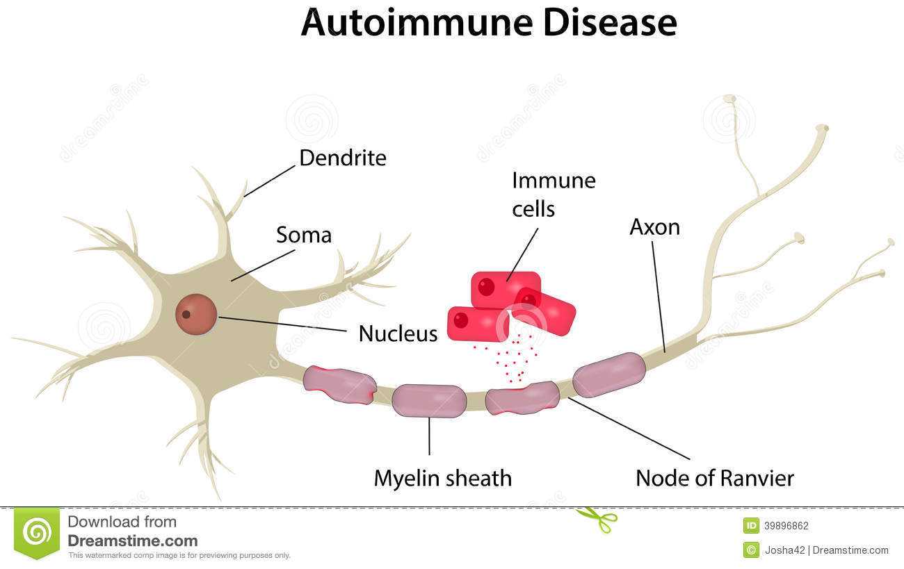 Autoimmune Disease Diagram Stock Vector  Illustration Of