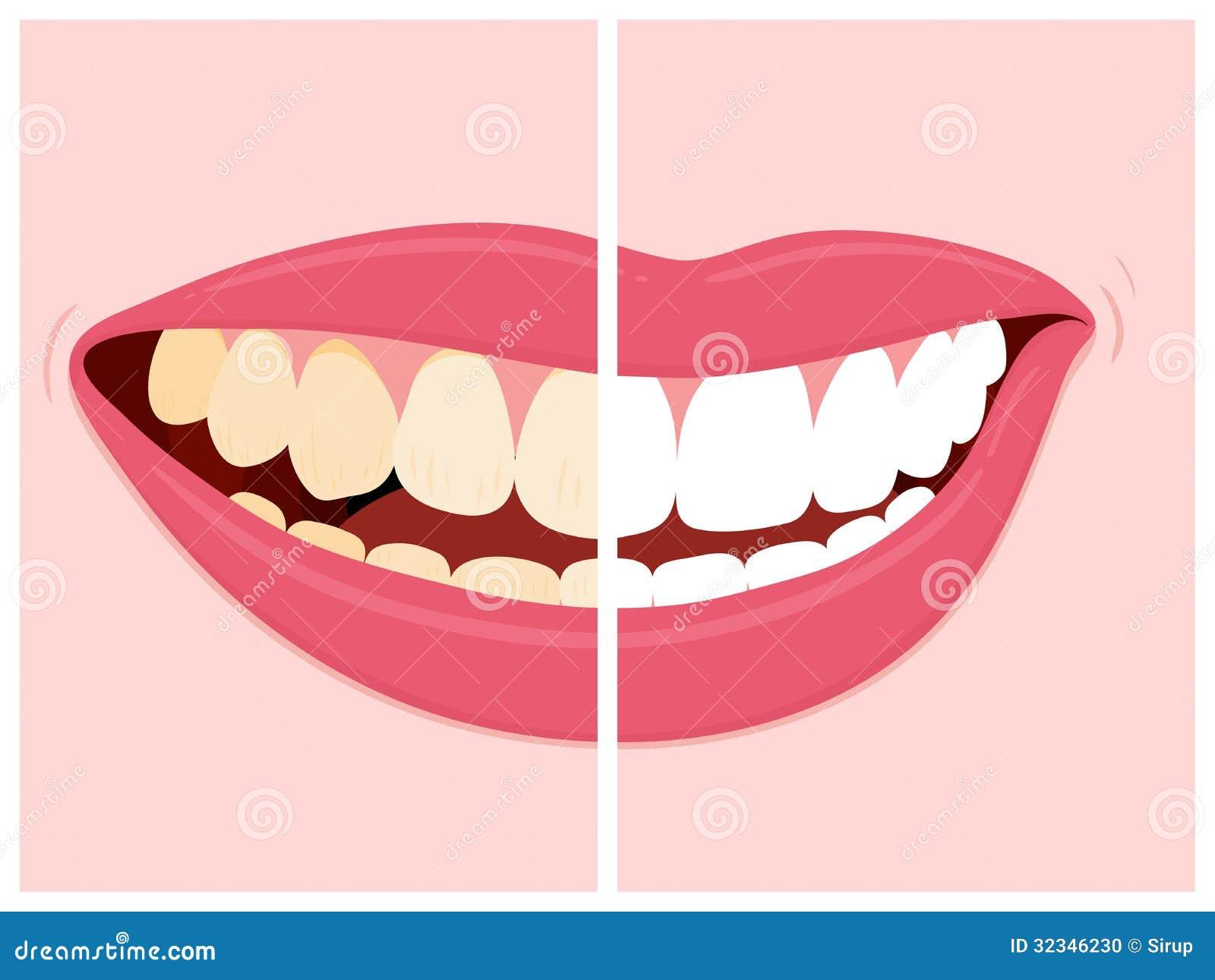 Avant et après la vue des dents blanchissant