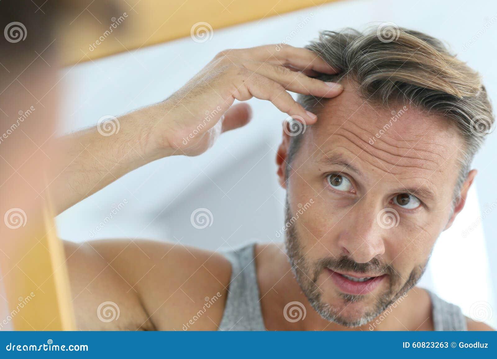 Avspegla ståenden av mannen som angås av hårförlust