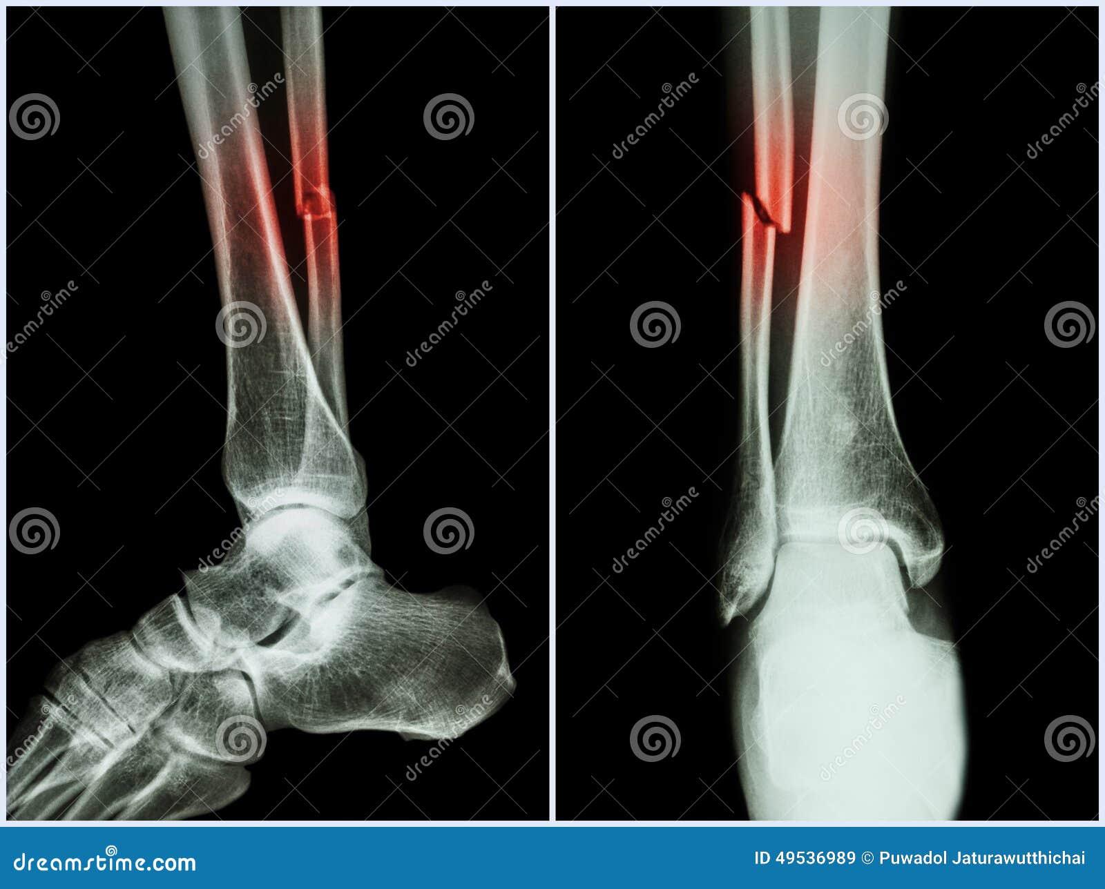 Axe de fracture d os de péroné (os de jambe) Rayon X de jambe (position 2 : vue de face latérale et)