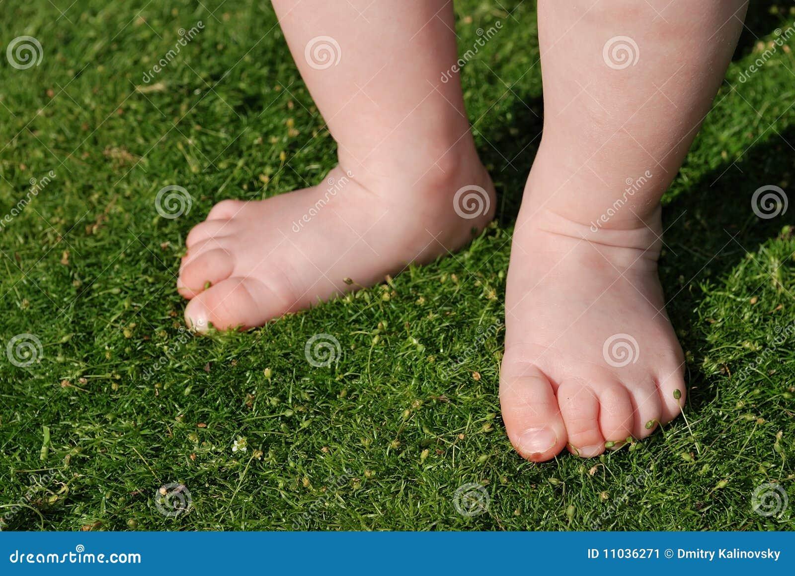 Проблемы со стопами ног у детей фото