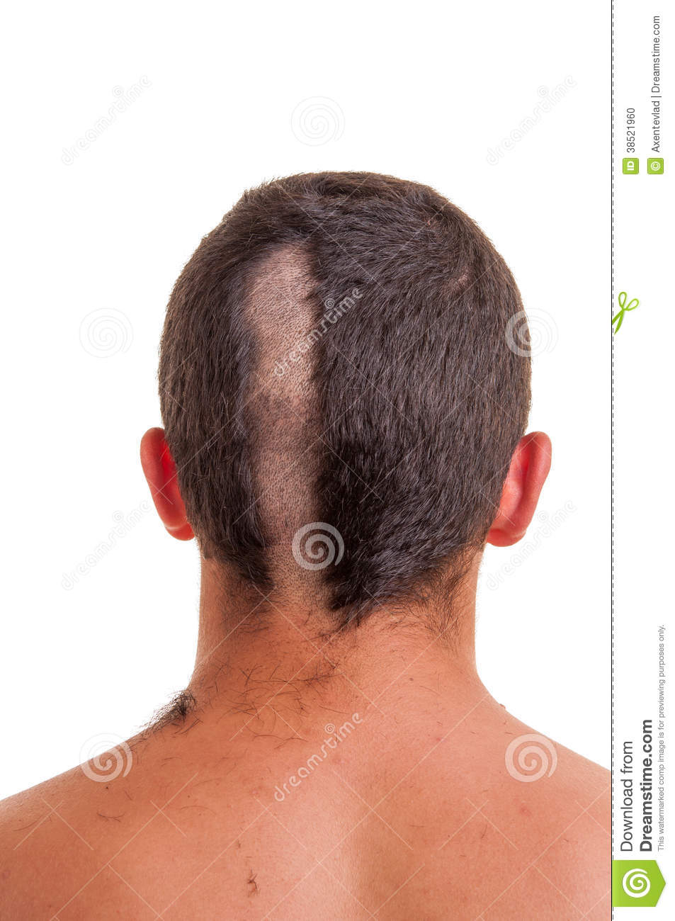 back of man head while his hair is cut stock photo - image