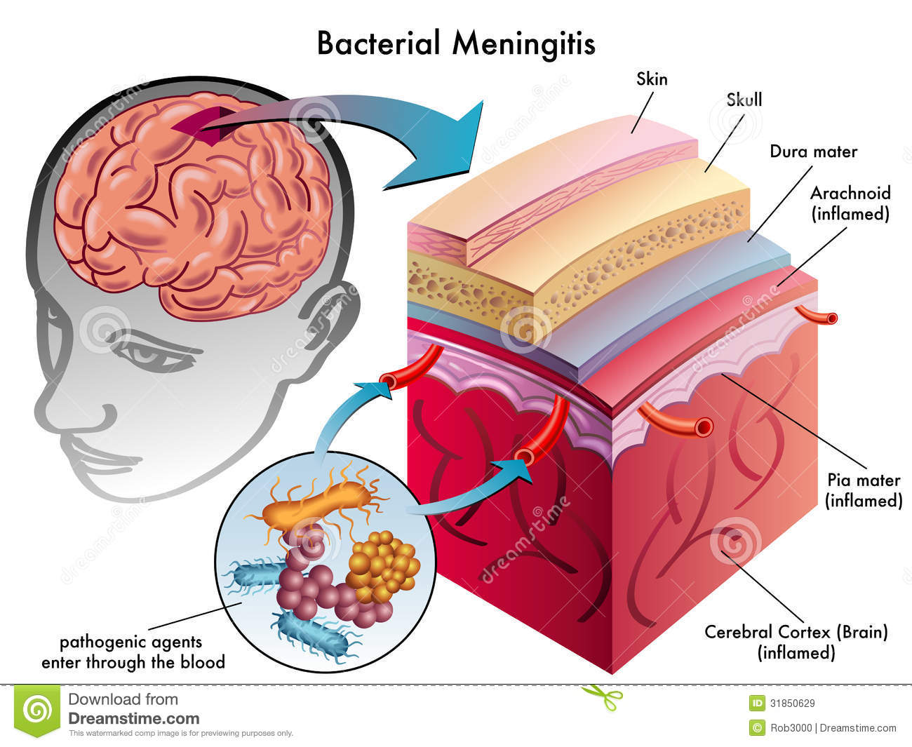 a medical review of meningitis Several previous studies, based on the analysis of large cohorts, have  from  other hospitals for intensive care (26 from medical units and 10 from other icus.