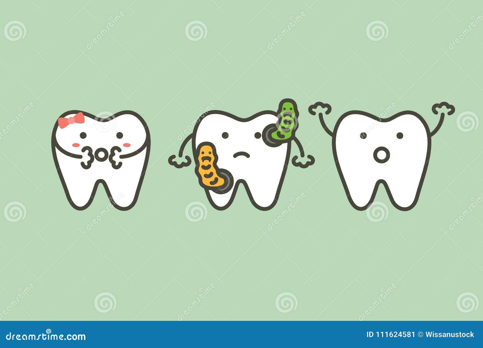 Bacterias en causas de los dientes del diente o de las caries de decaimiento