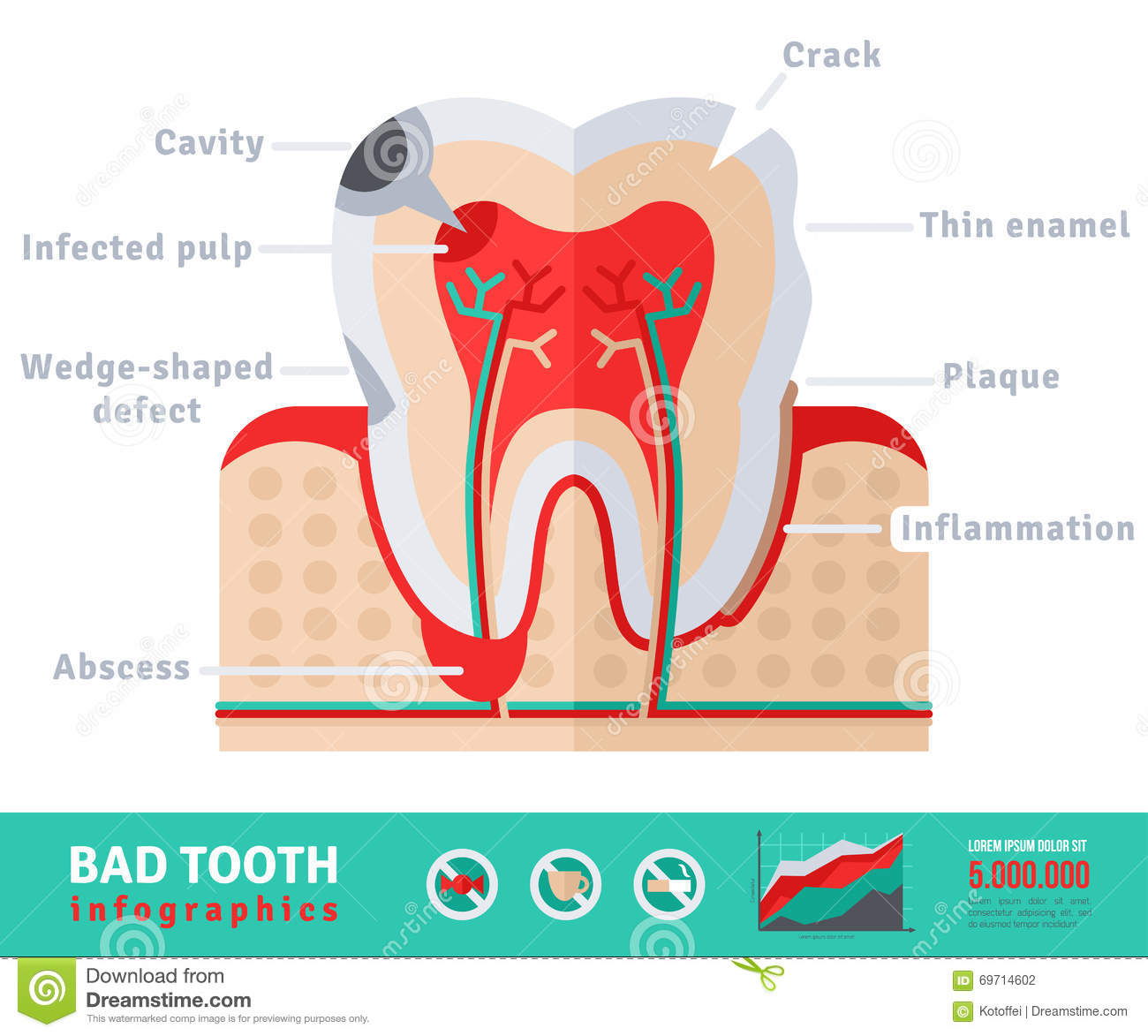Bad Tooth Anatomy Flat Icon Concept Stock Vector - Illustration of ...