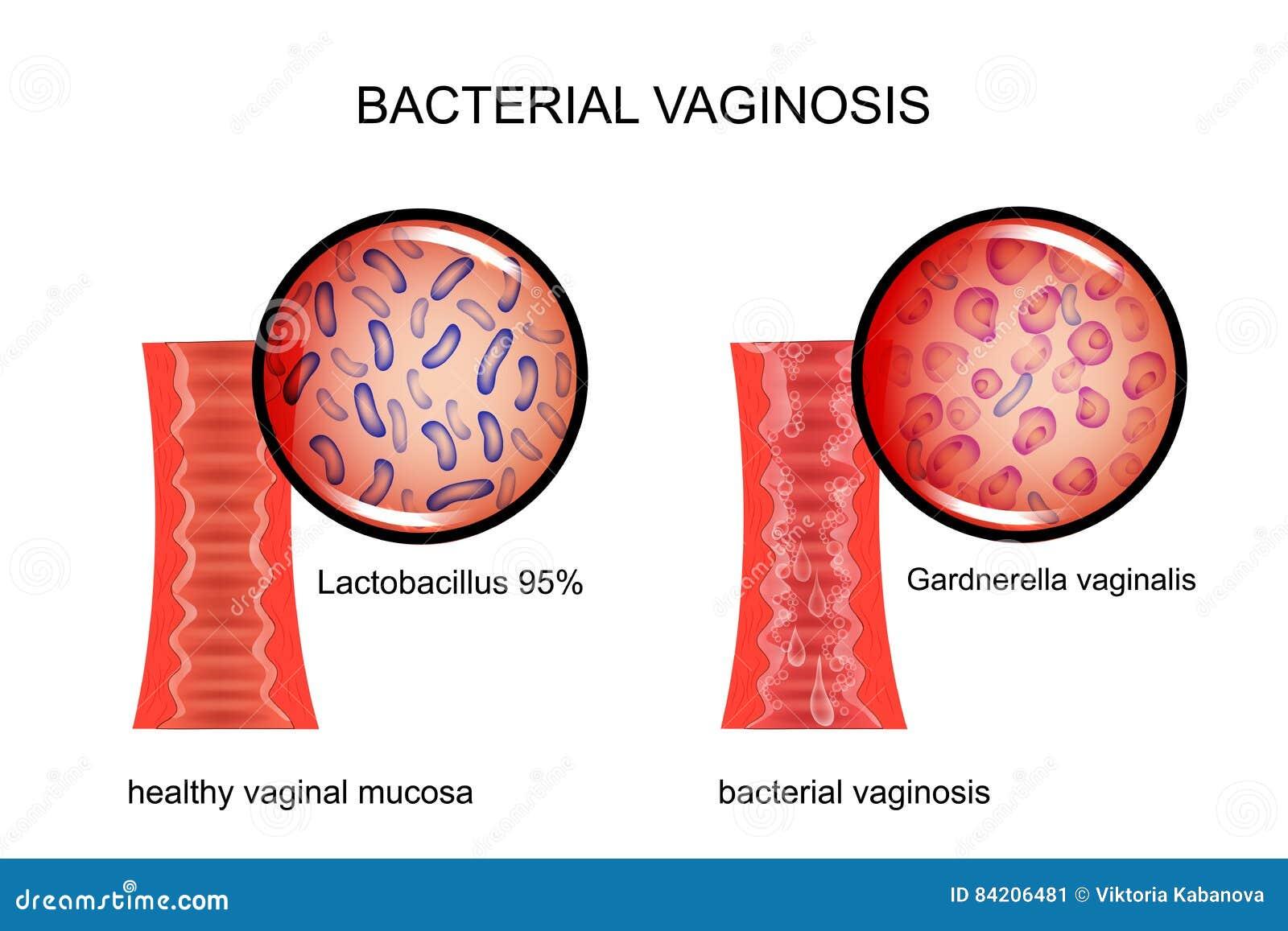 Bakterie- vaginosis slidan och det kausativa medlet