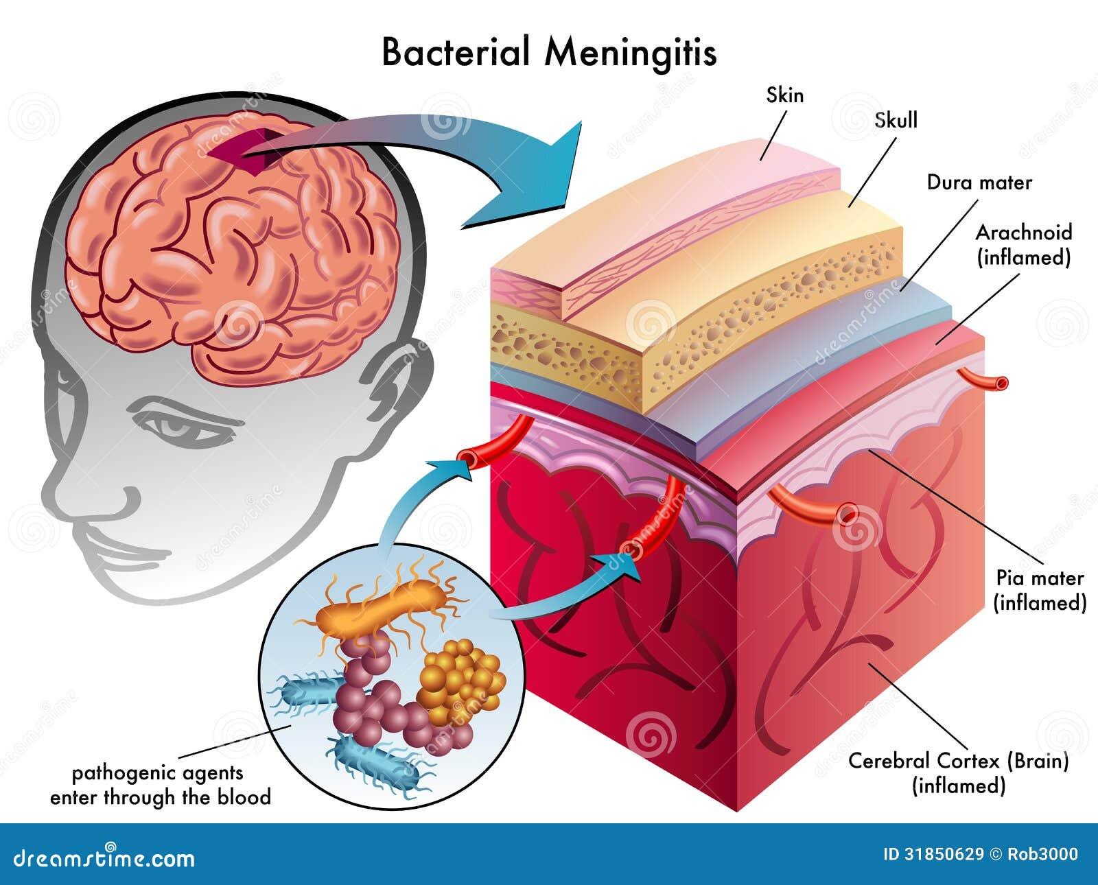 Bakteryjny meningitis
