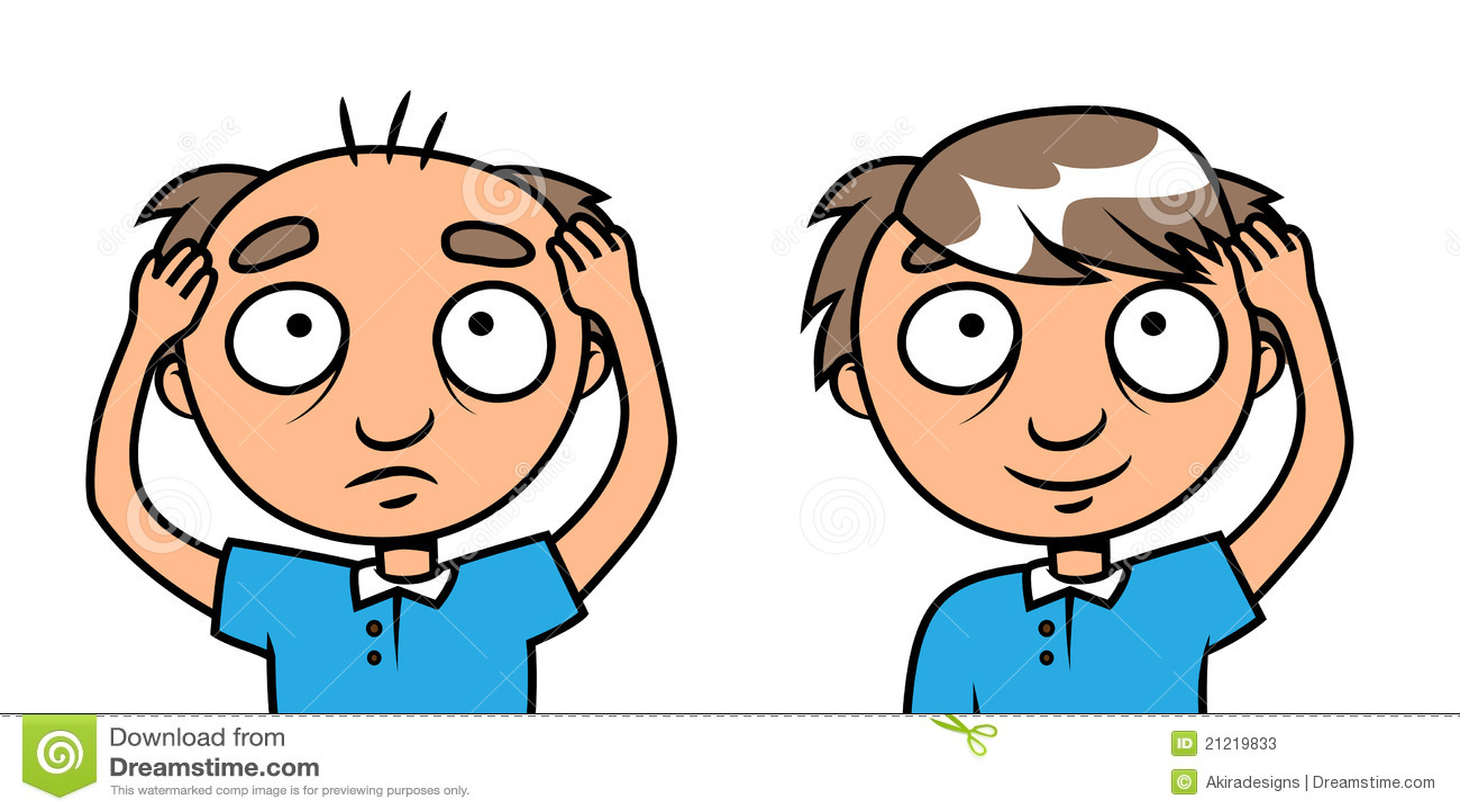 Bald Man Hair Loss Treatment Stock Vector Image 21219833