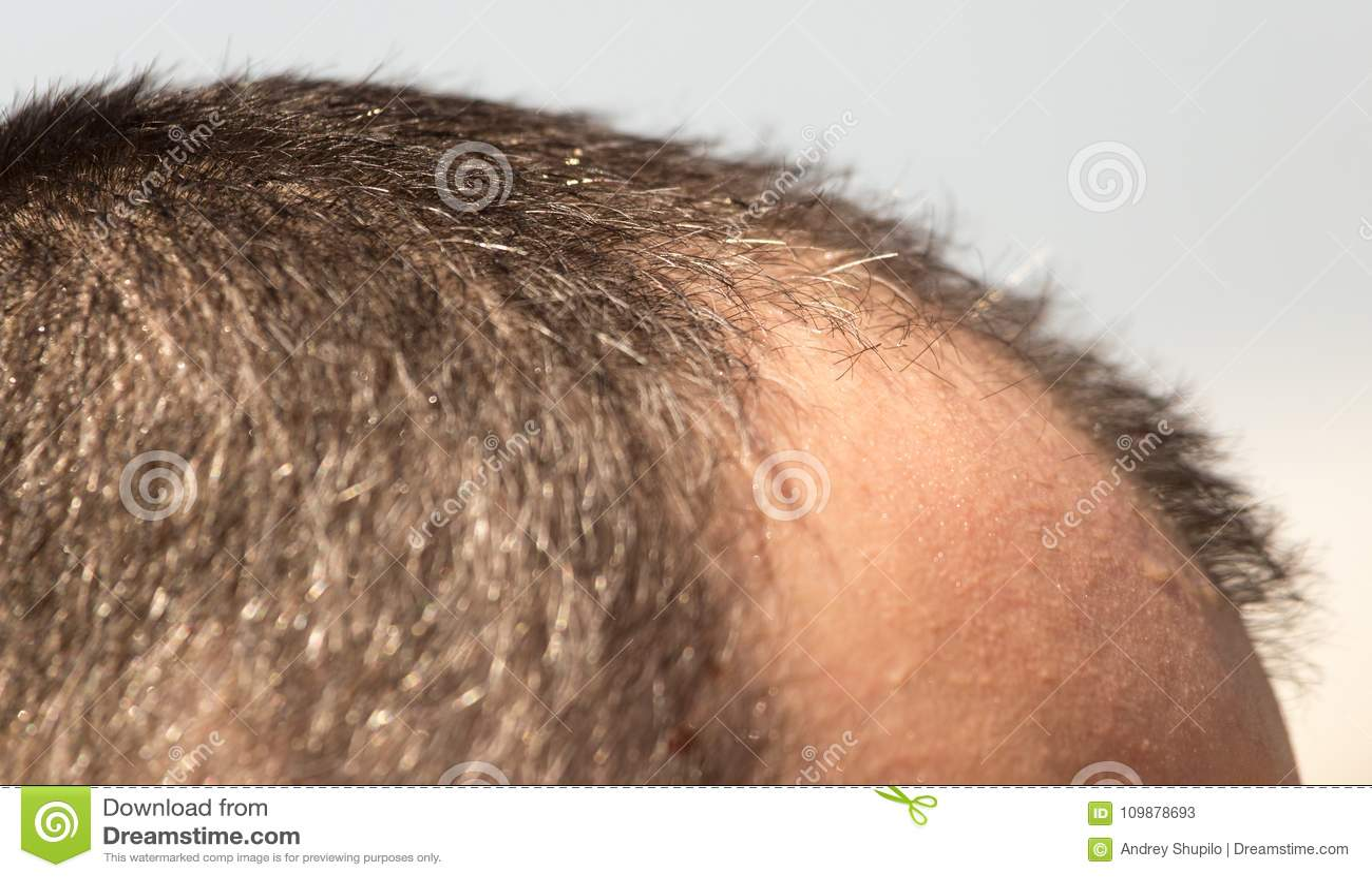 💄 bald spot on back of head