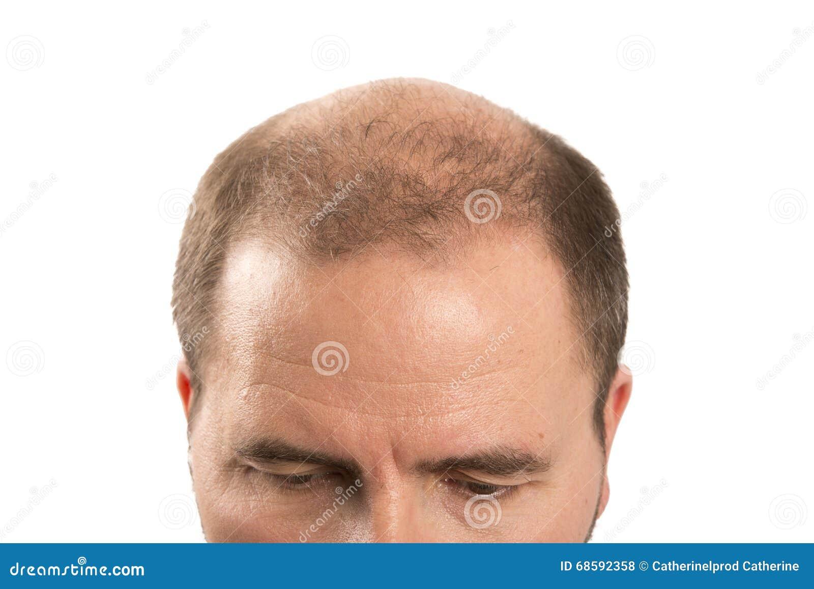 Baldness Alopecia Man Hair Loss Haircare Stock Photo Image Of Lost