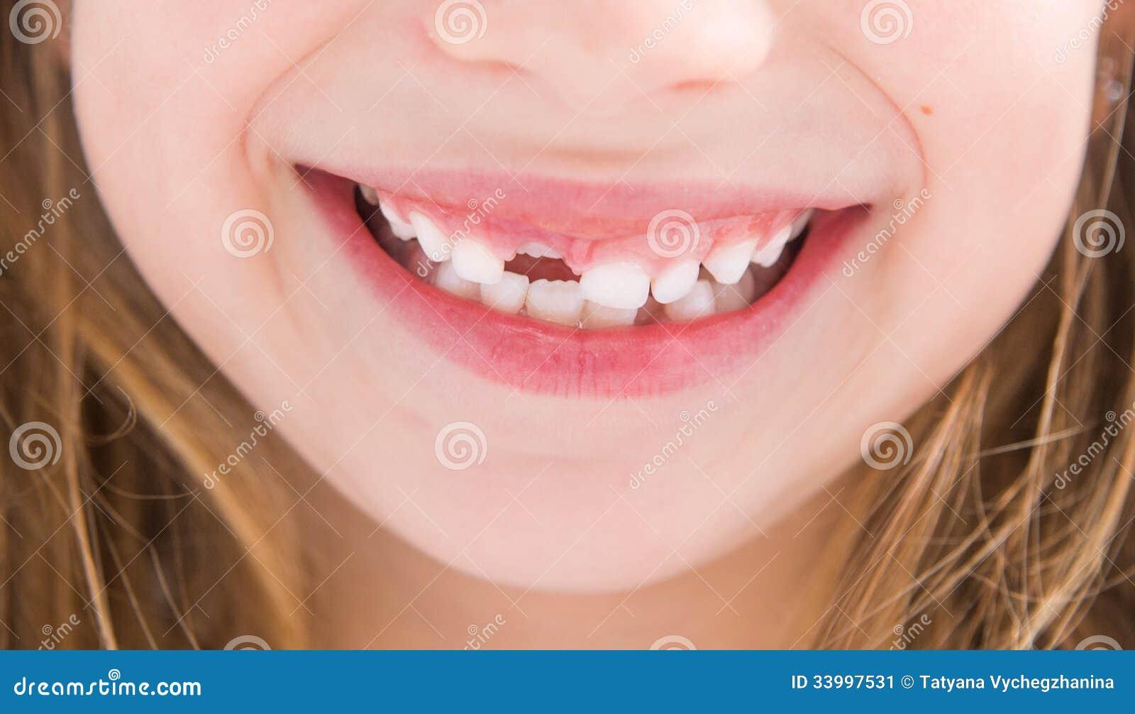 Bambina senza un dente