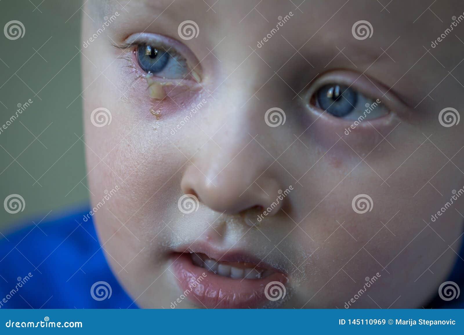 Bambino con la congiuntivite purulenta, infezione di occhio contagiosa Sintomi e concetto di trattamento Fine in su