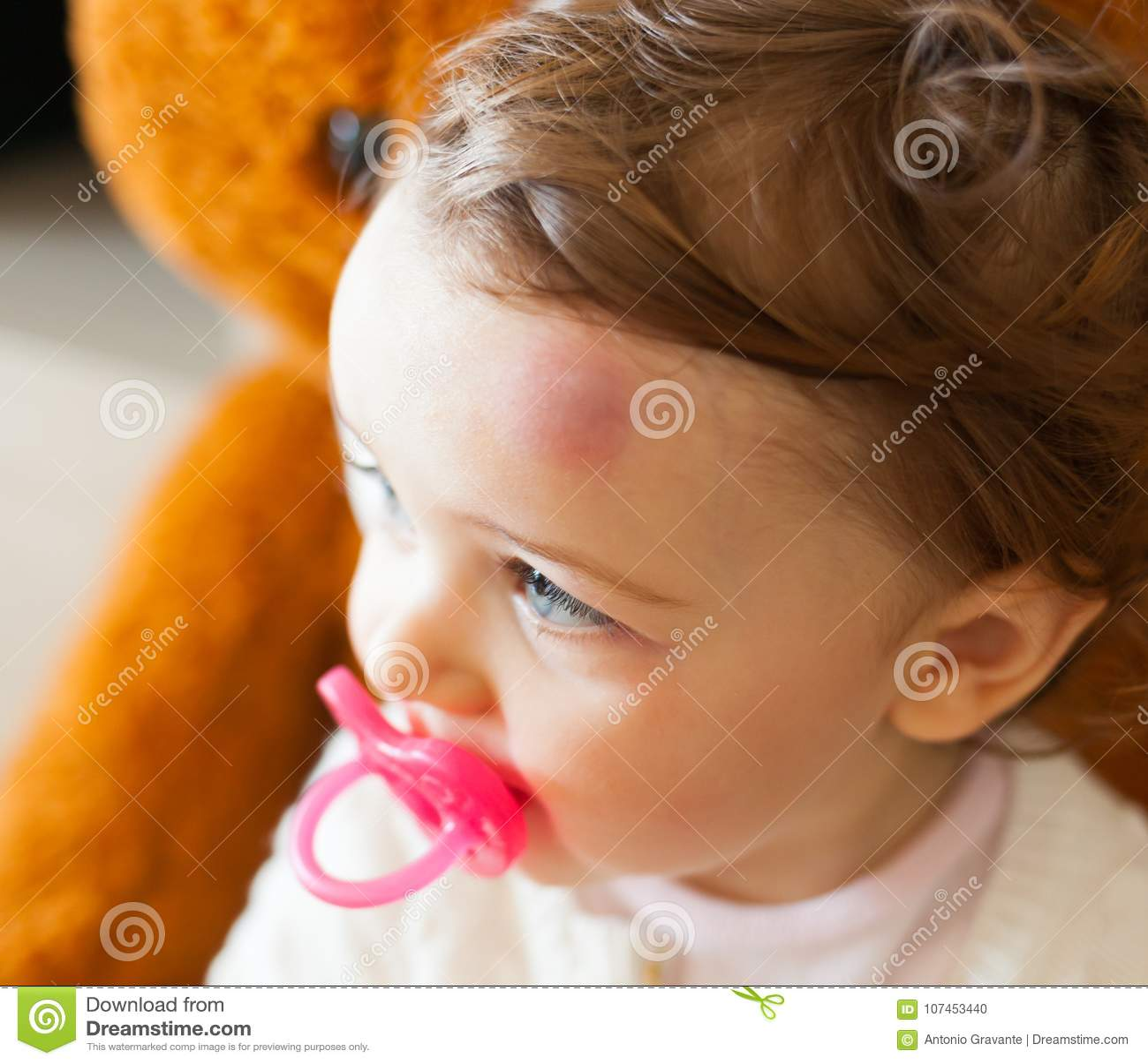 Bambino con la grande contusione sulla sua fronte dopo avere urtato