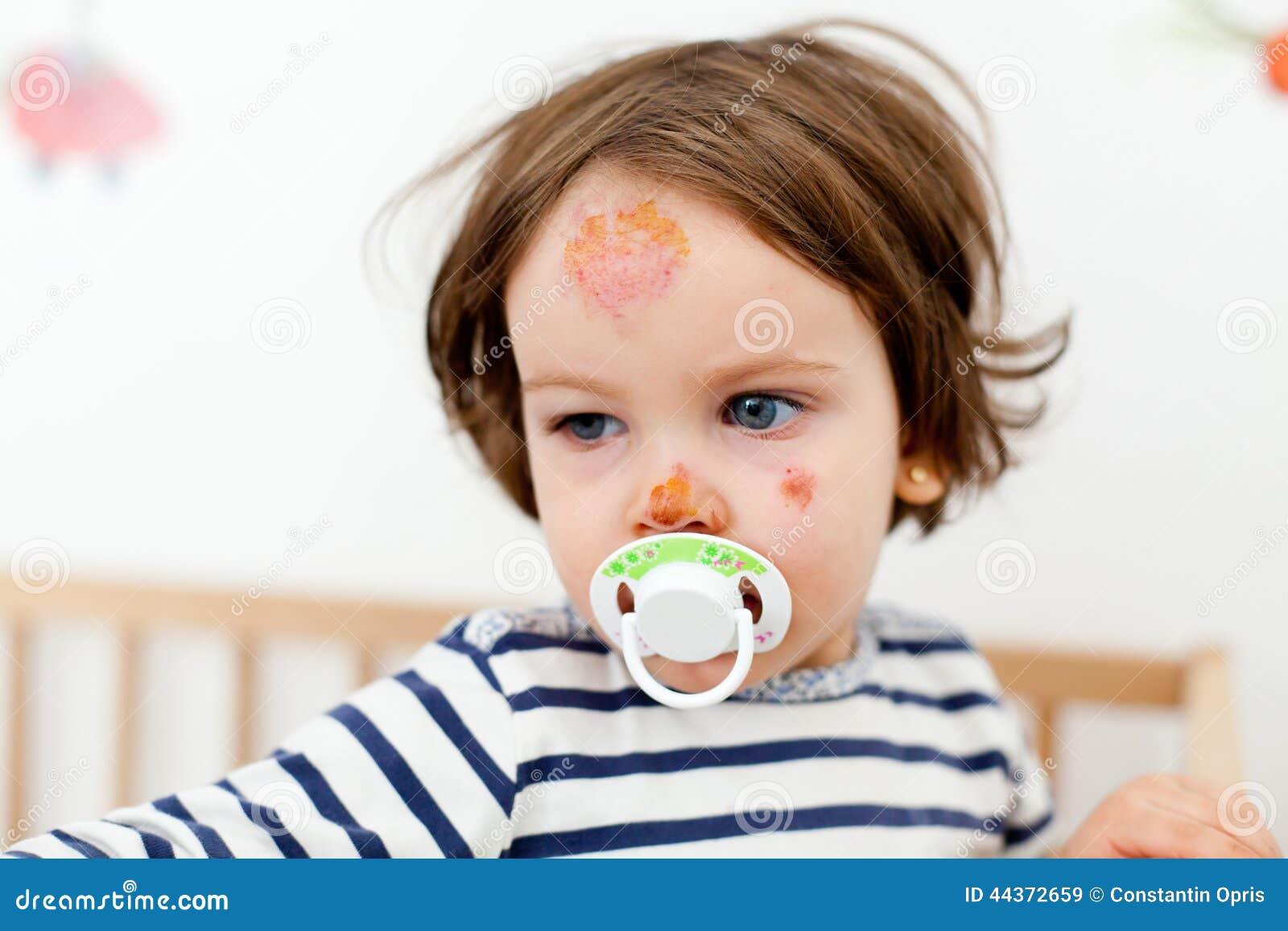 Bambino con le lesioni del fronte