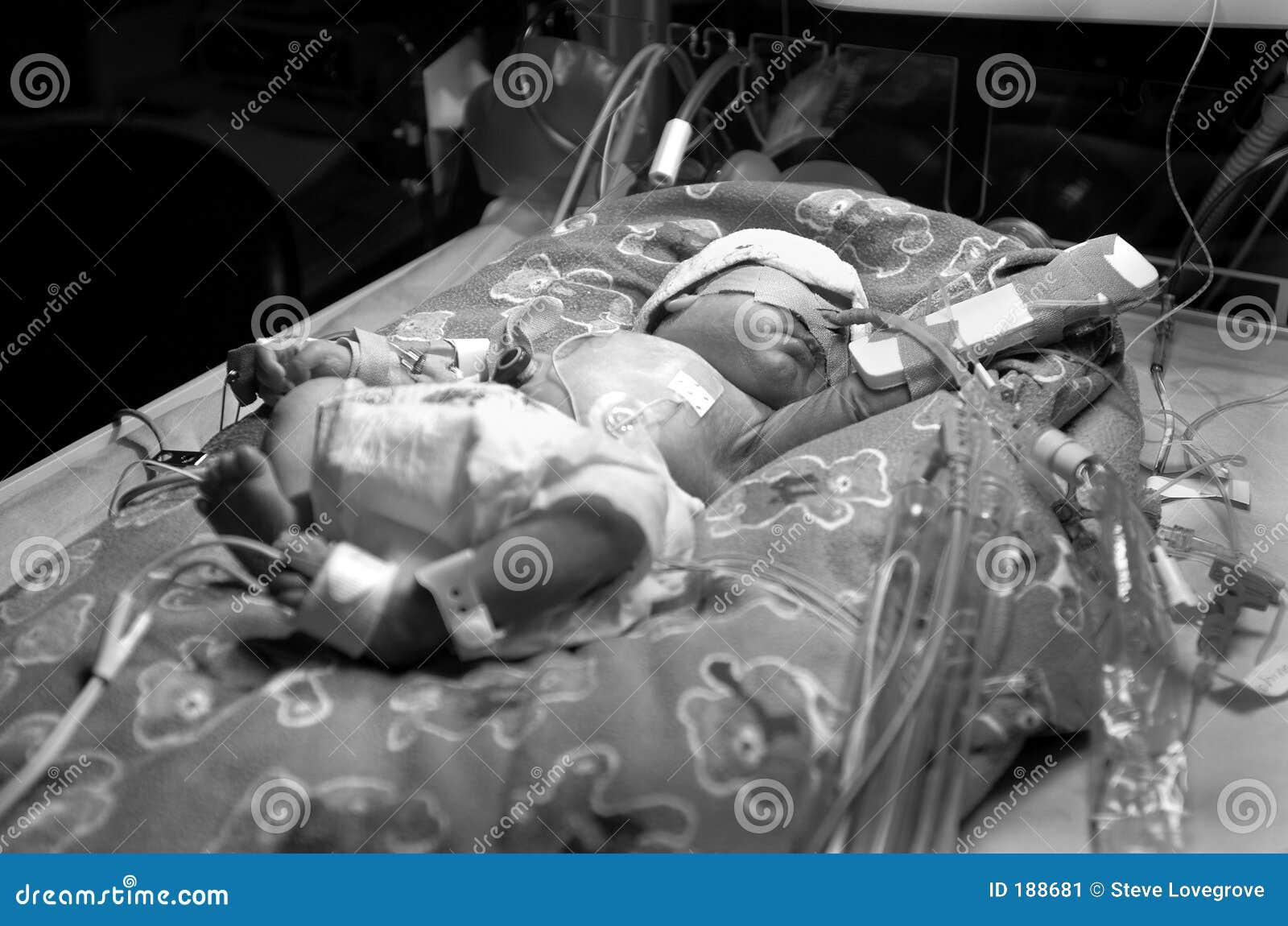 Bambino prematuro