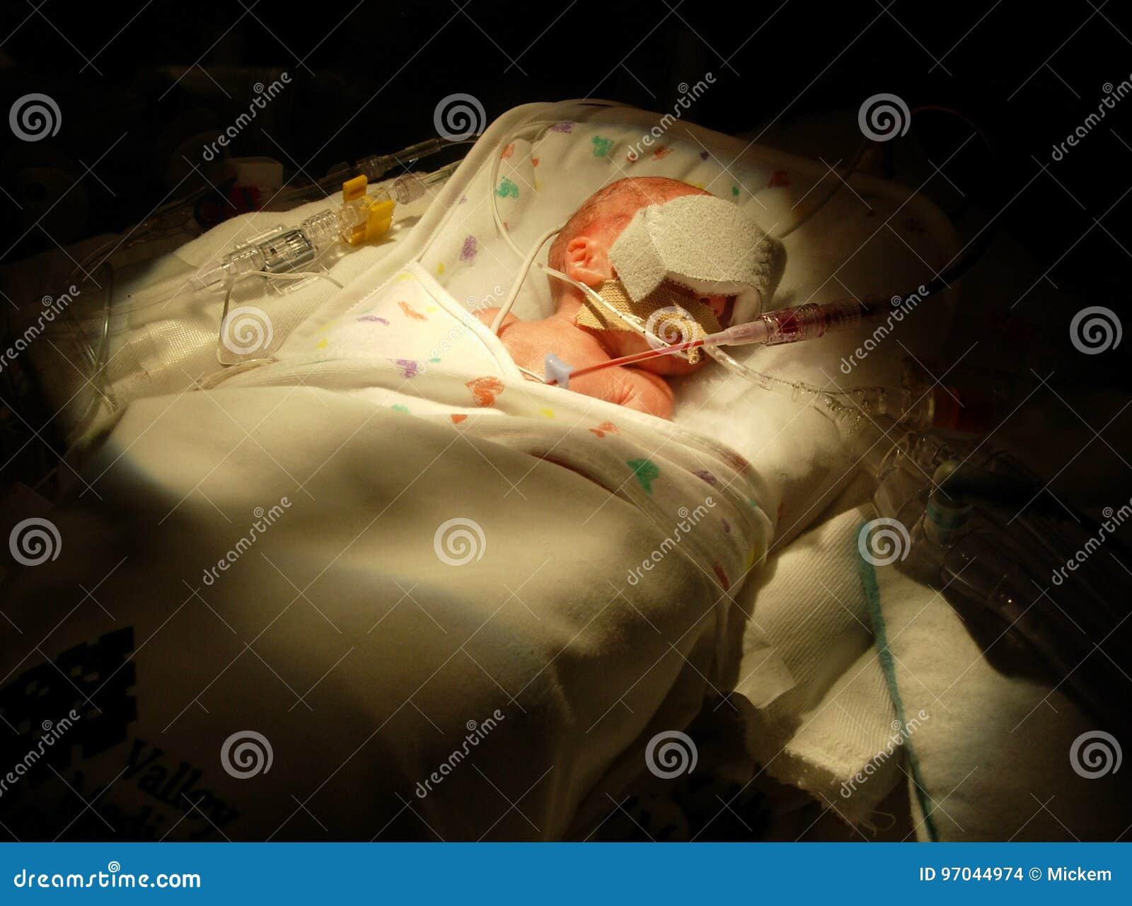 Bambino prematuro sul ventilatore
