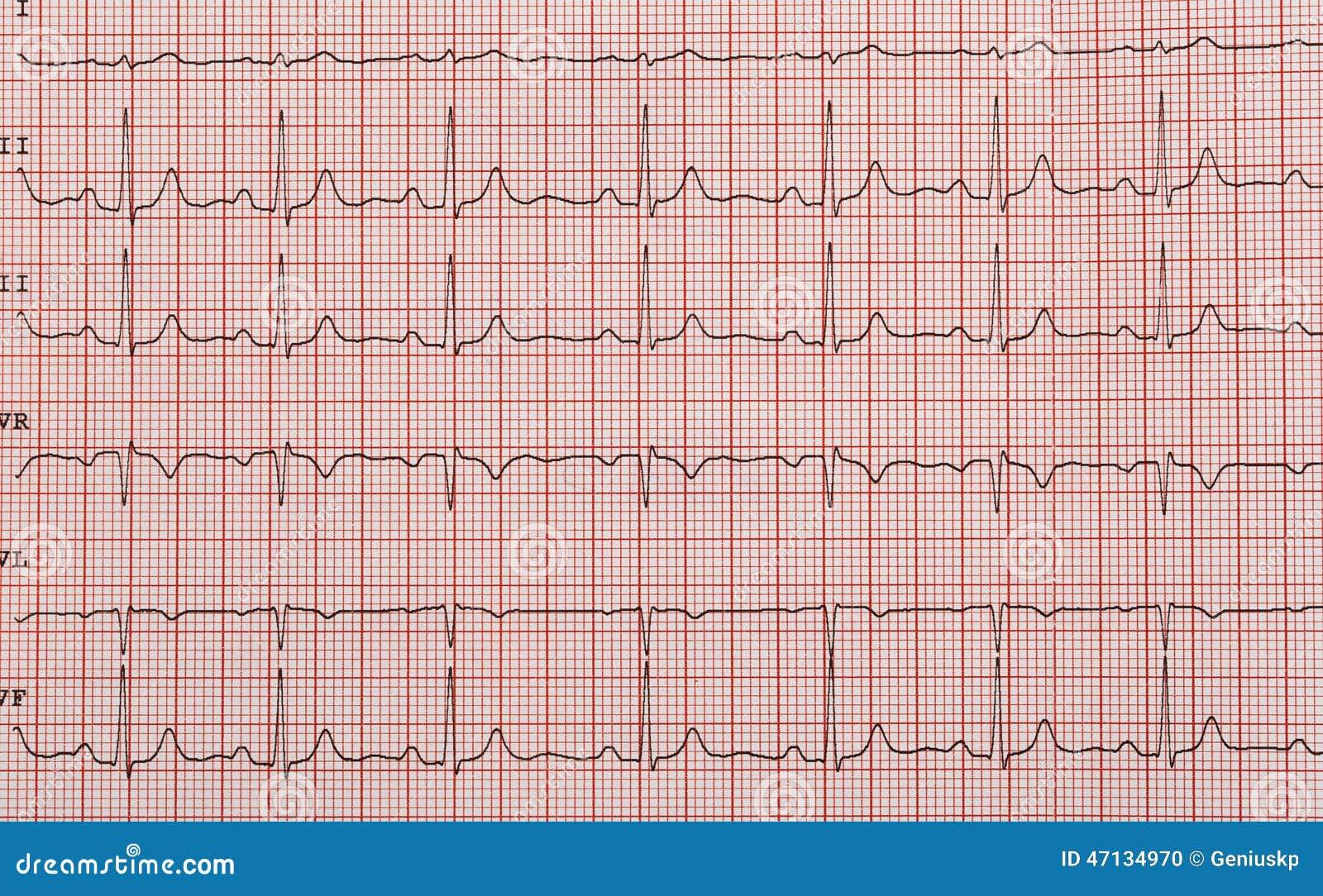 Band met het cardiogram