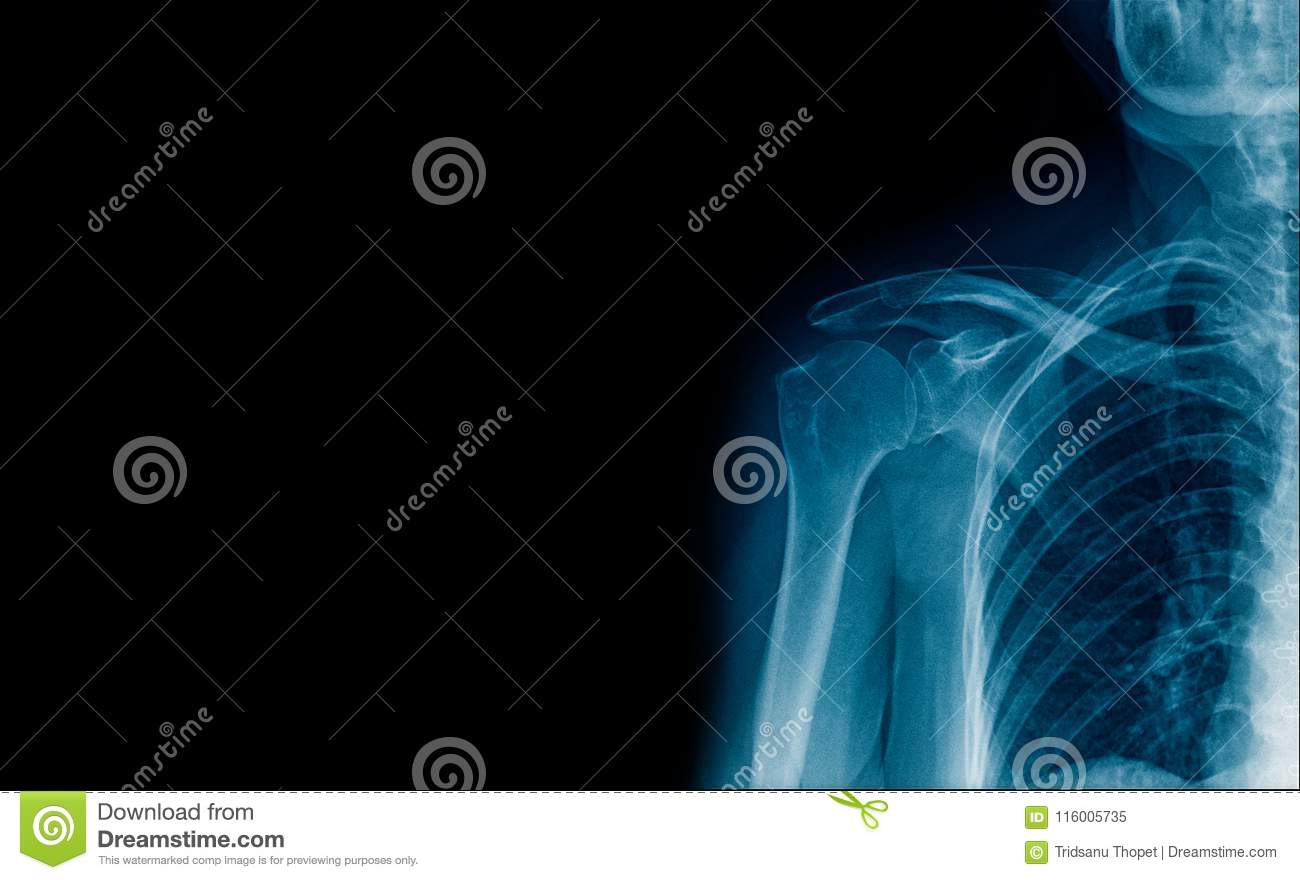 Banner x-ray shoulder joint