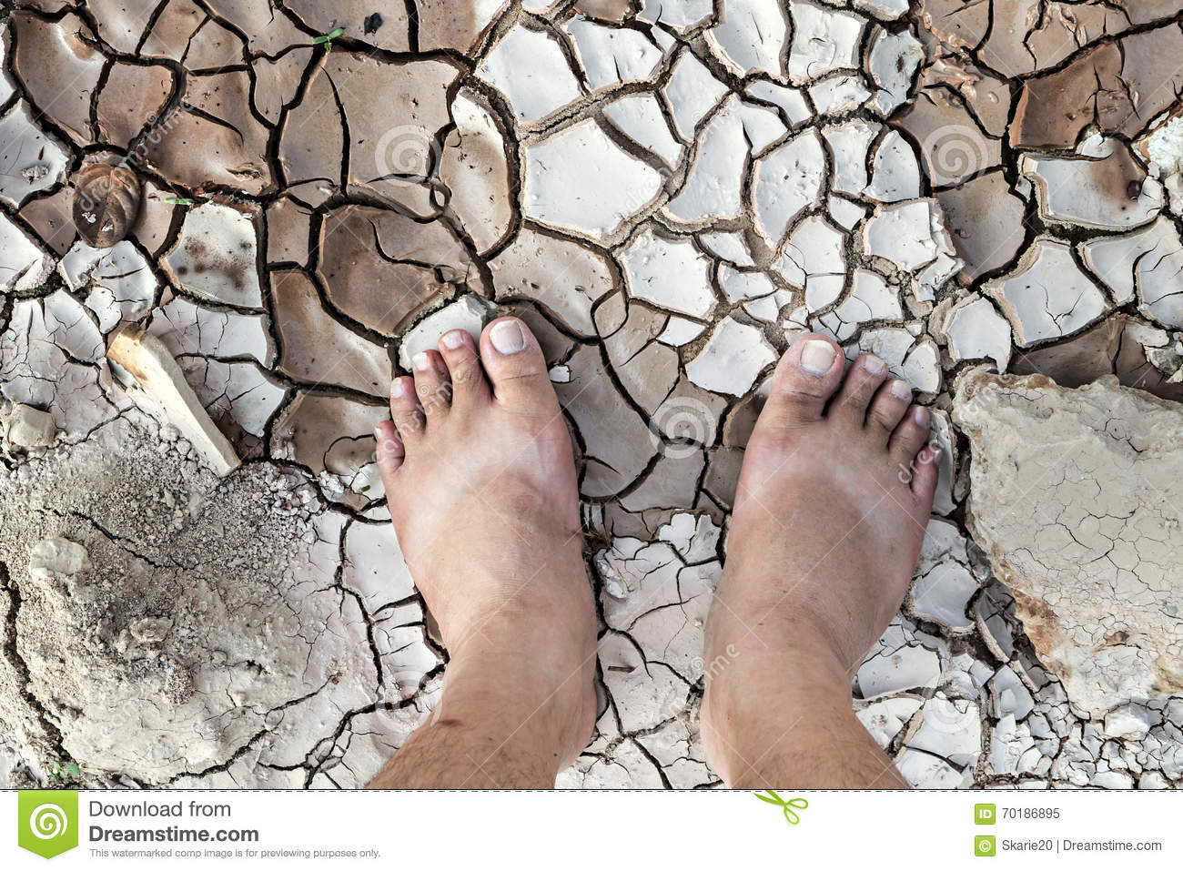 Barefoot standing on dry and cracked ground stock image image of royalty free stock photo malvernweather Images
