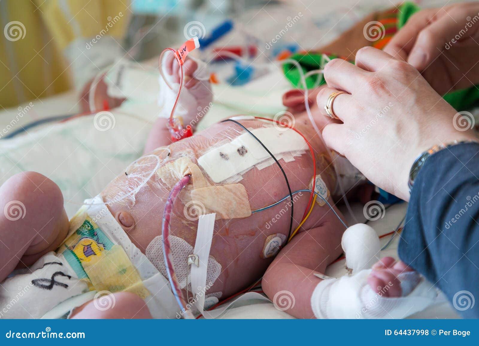 Barnintensivvård