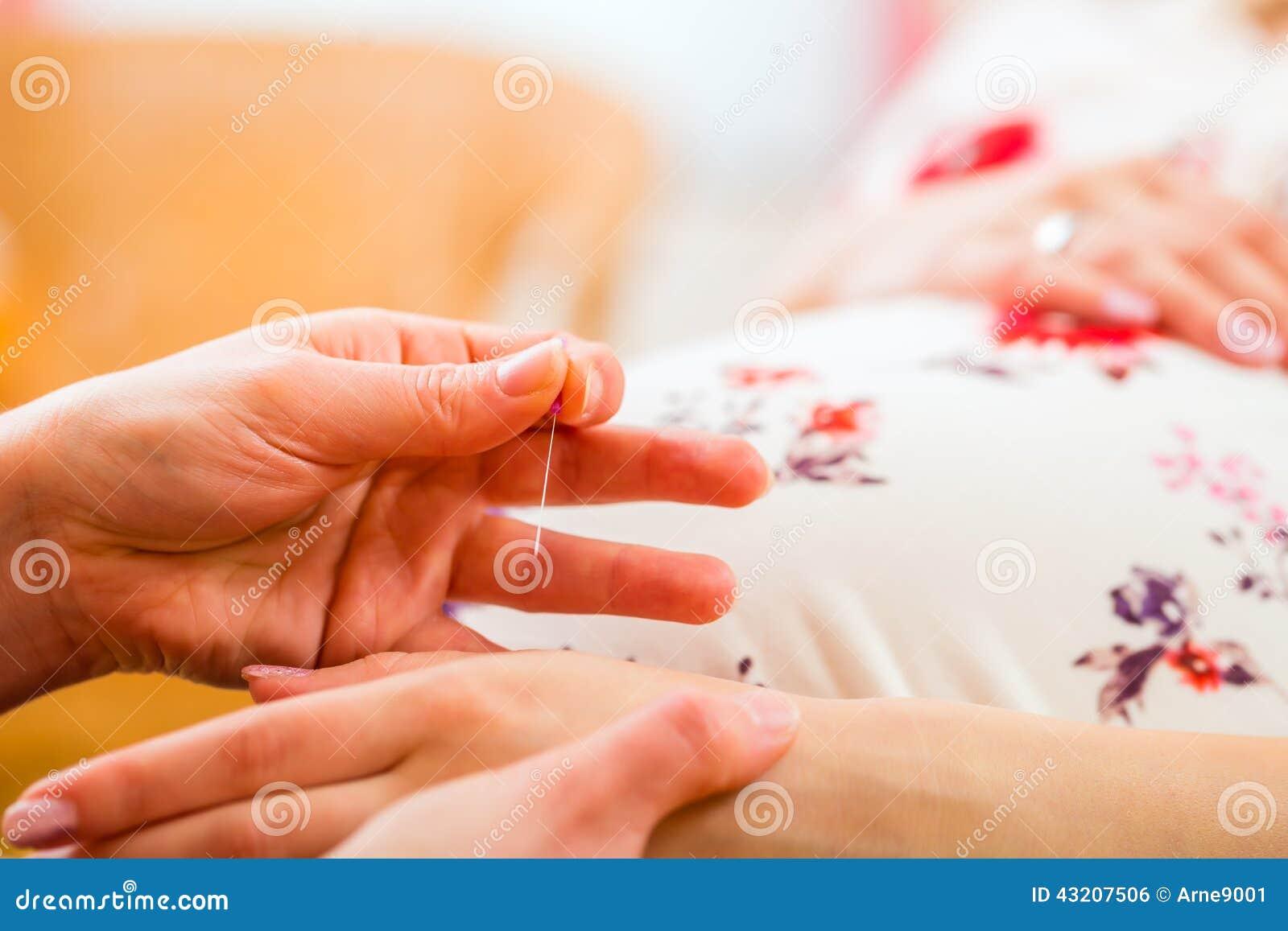 Download Barnmorska Som Ger Havandeskapakupunktur Arkivfoto - Bild av havandeskap, övning: 43207506