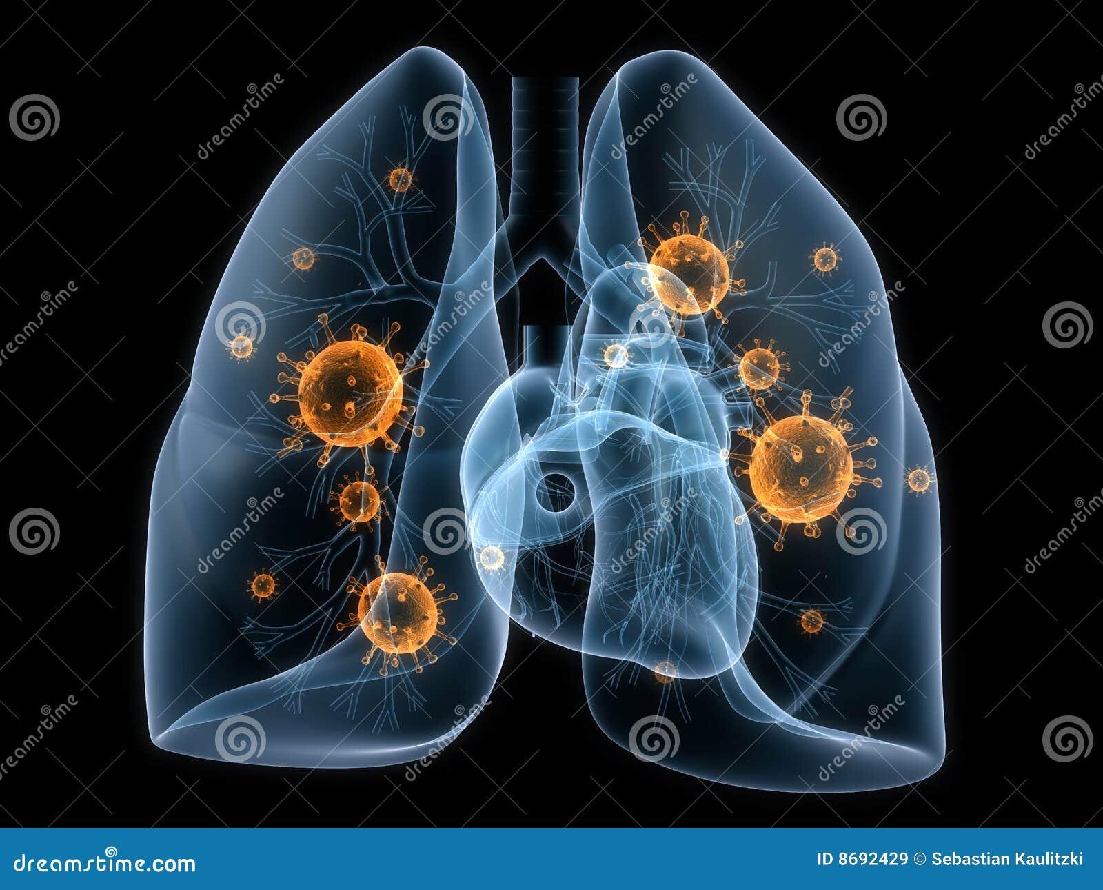 Batteri del polmone