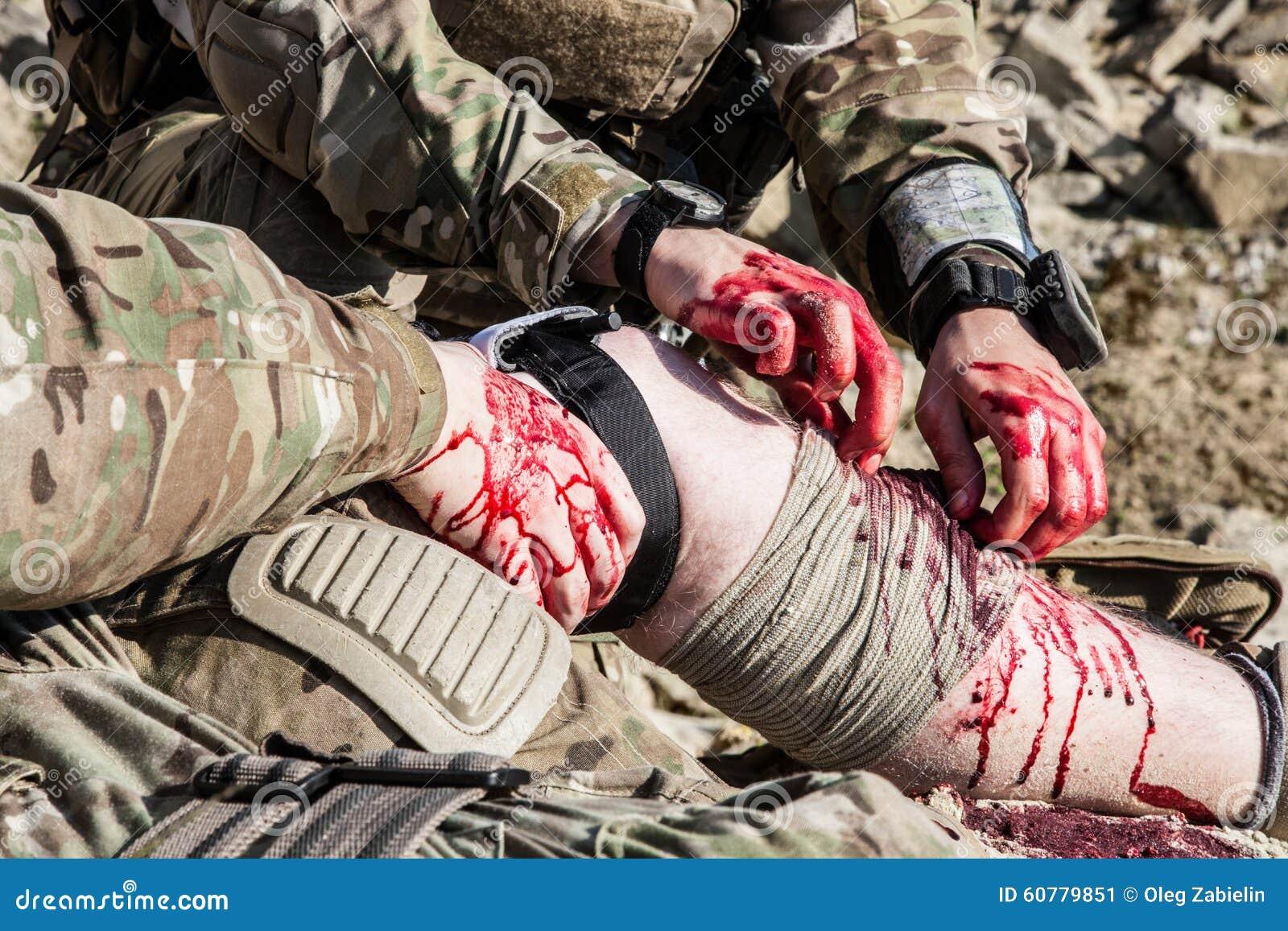 battlefield medicine stock image  image of blood