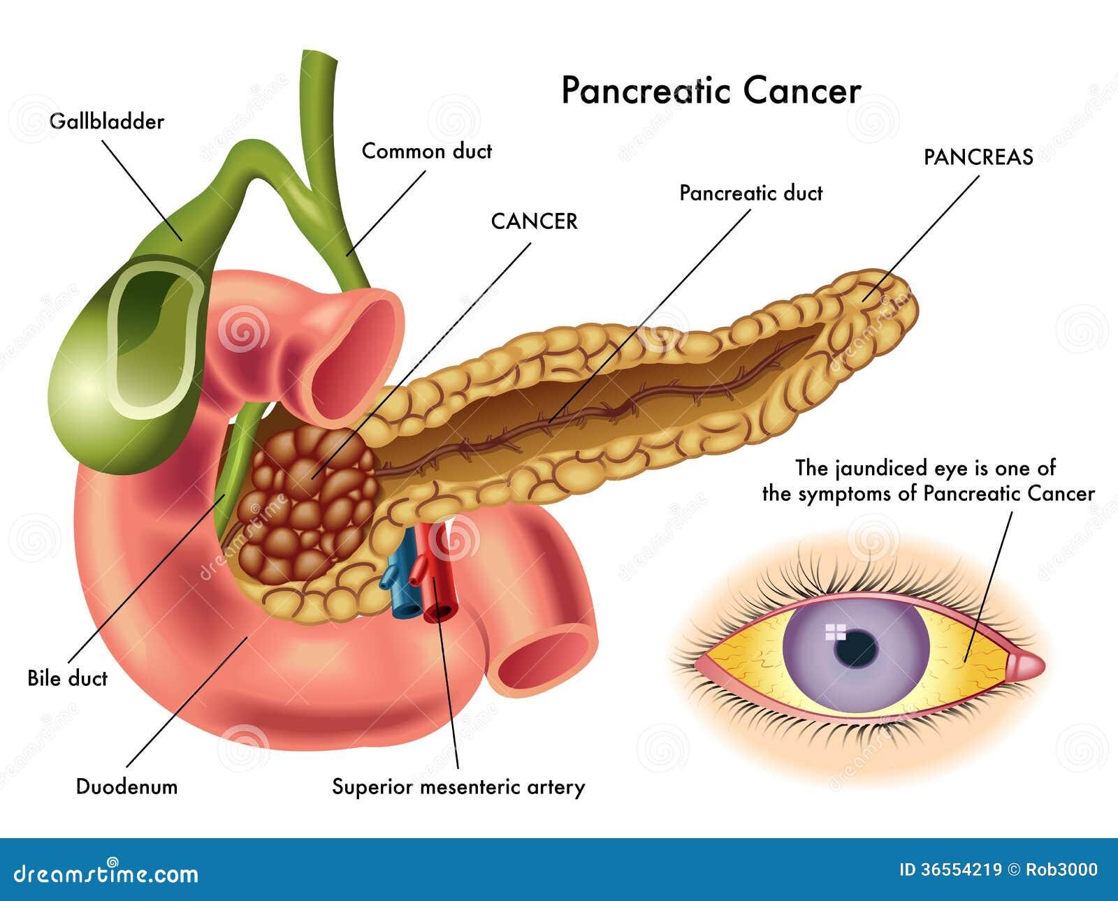 Bauchspeicheldrüsenkrebs vektor abbildung. Illustration von verlust ...
