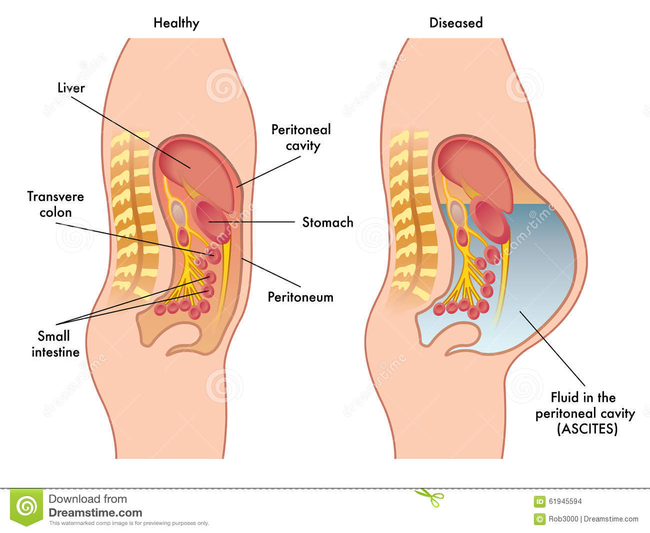 Peritoneum Stock Illustrationen, Vektors, & Klipart – (45 Stock ...
