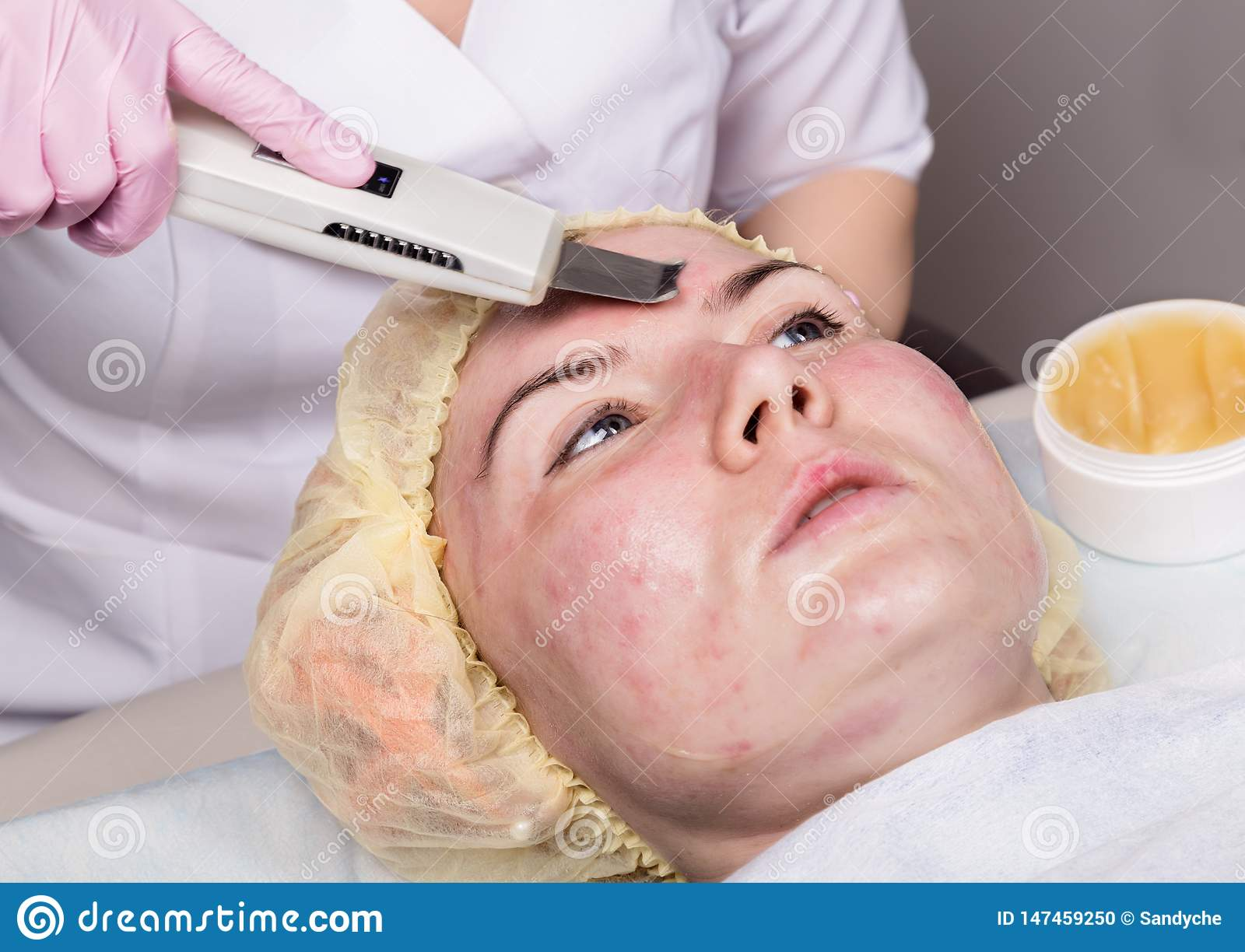 Beautician at work. Ultrasonic face cleaning procedure for problem skin. Pore cleansing, oxygen saturation for woman`s