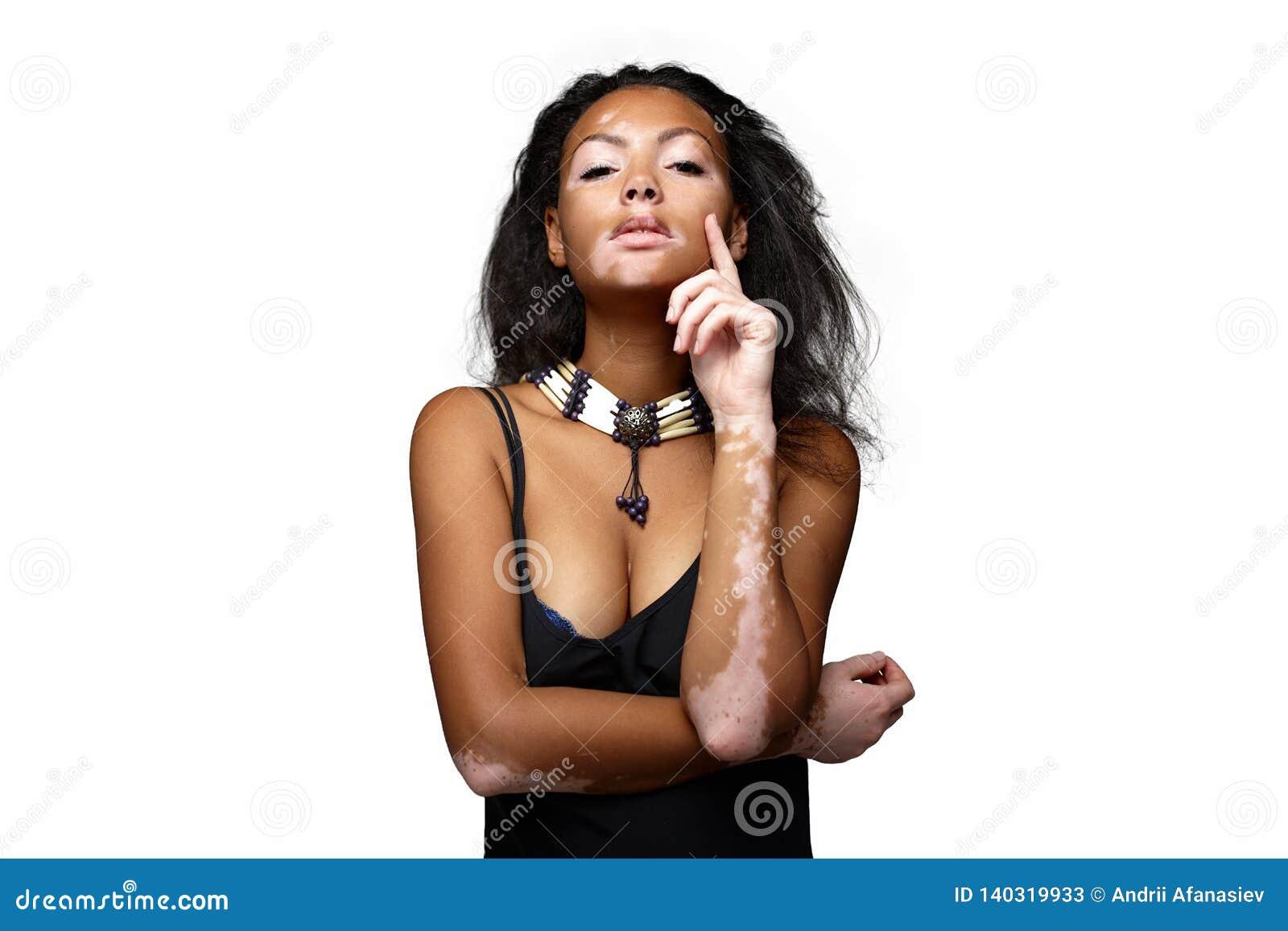 Beautiful African Girl In Studio With Skin Problems Vitiligo Studio Shooting Stock Image Image Of Dermatology Black 140319933